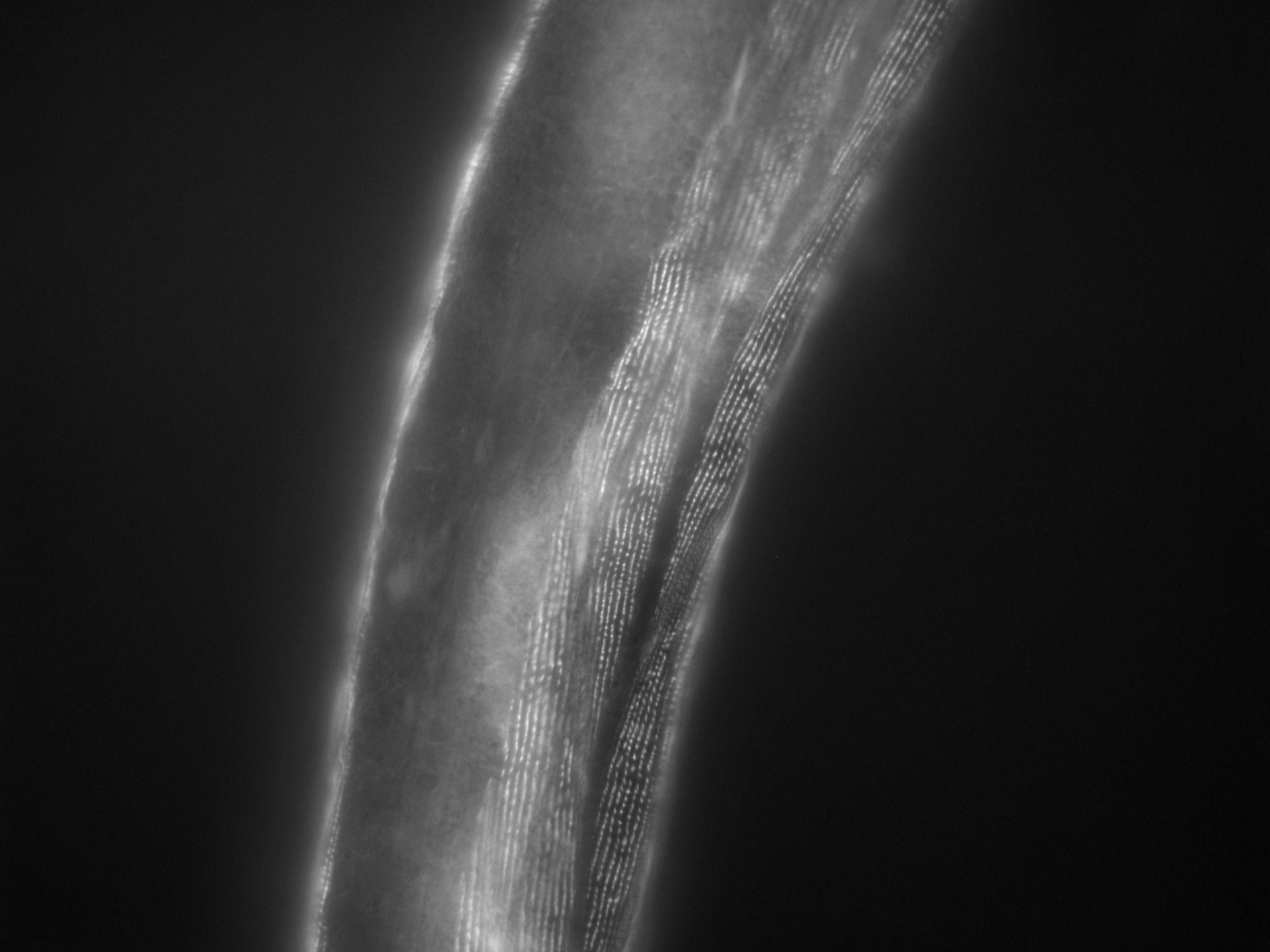 Caenorhabditis elegans (filamento di actina) - CIL:1148