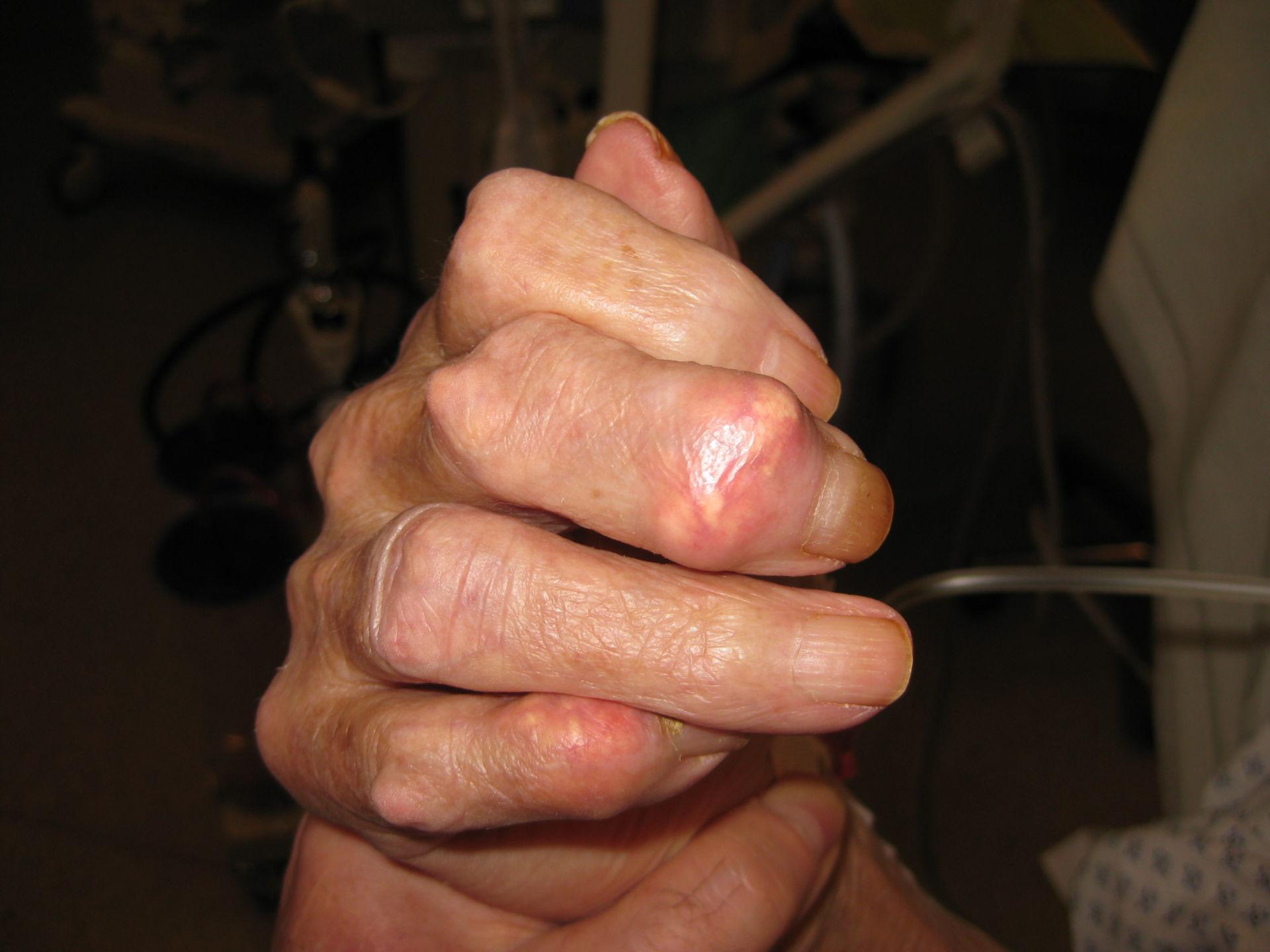 Arthritis urica