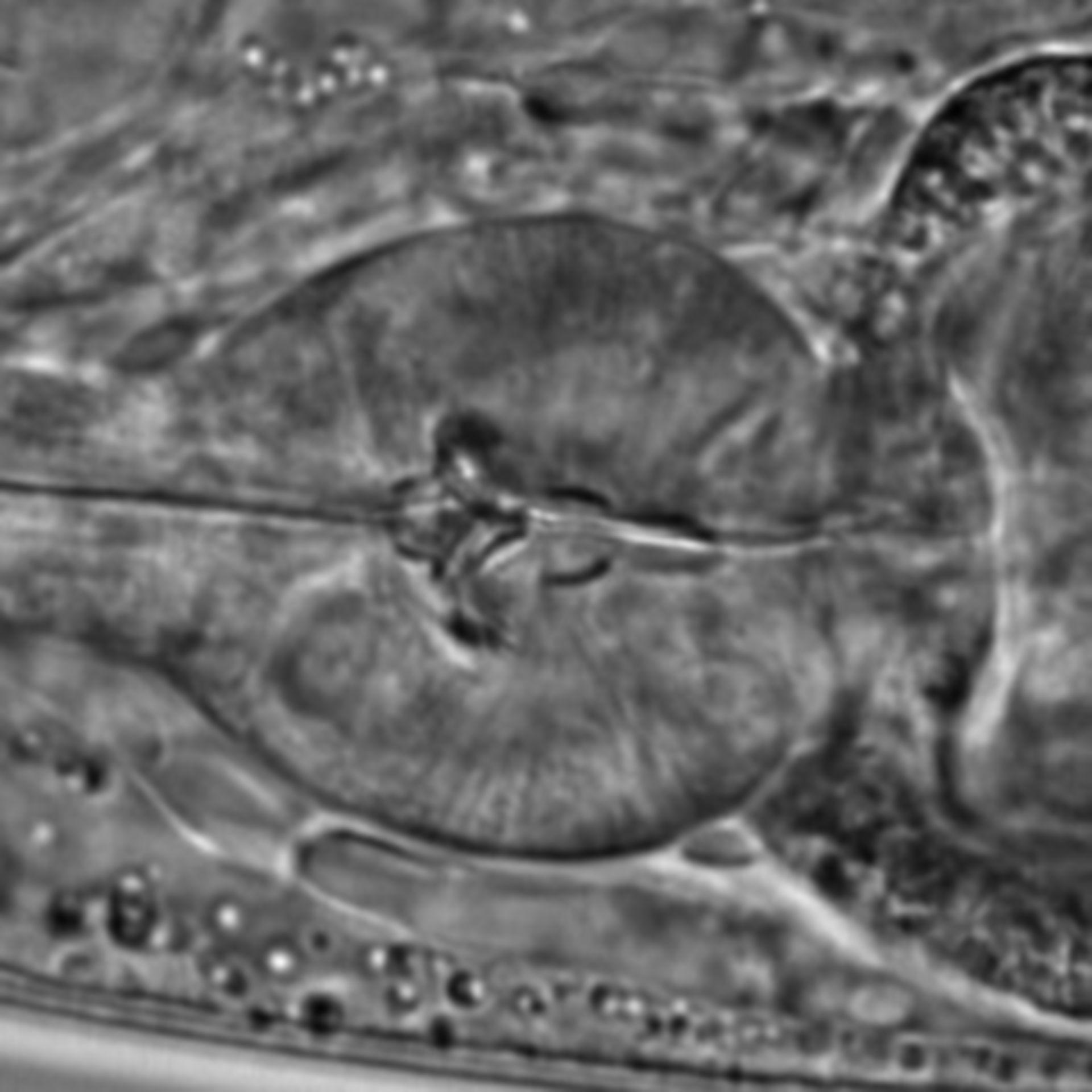 Caenorhabditis elegans - CIL:1587