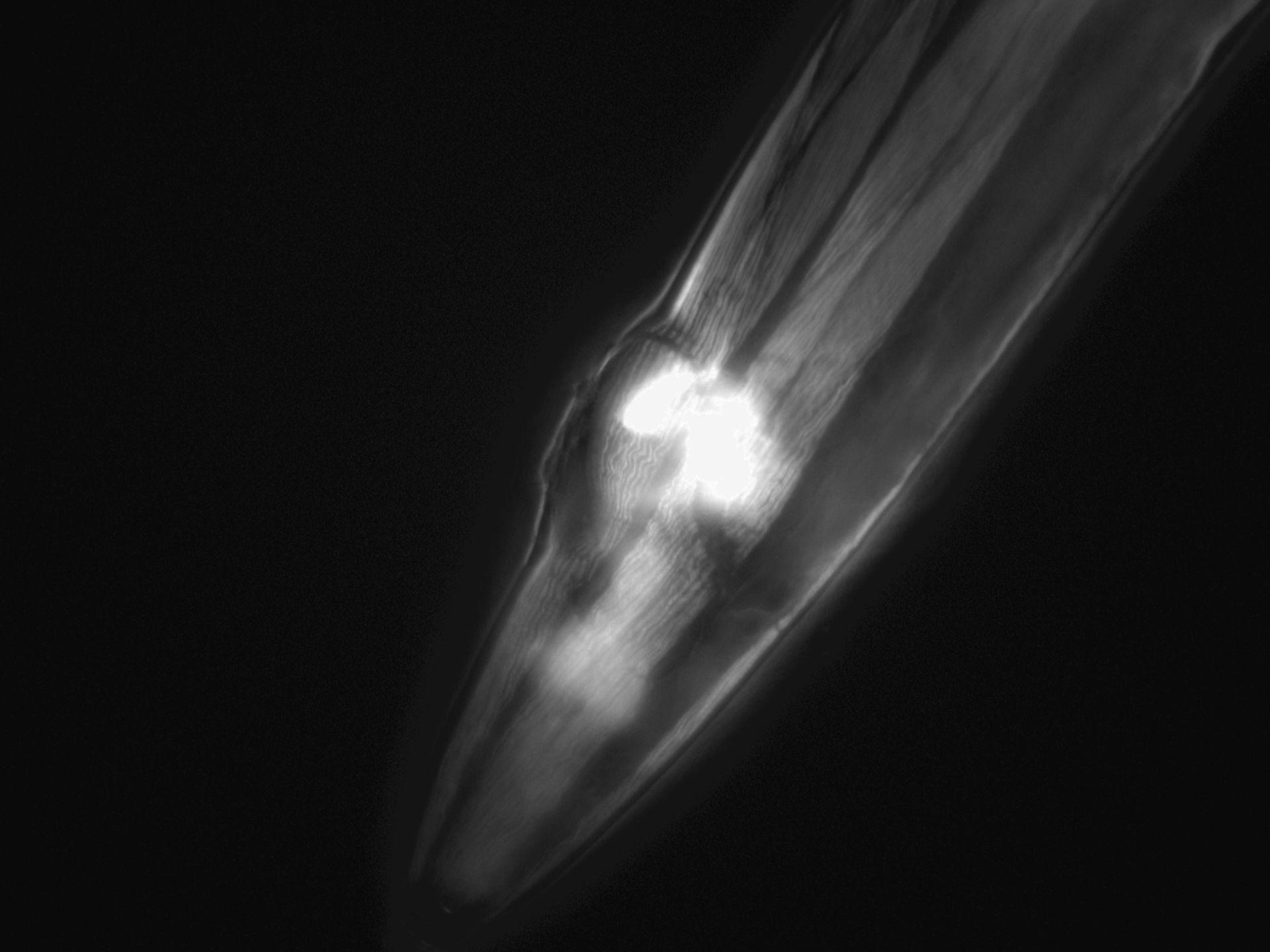 Caenorhabditis elegans (Actin filament) - CIL:1283