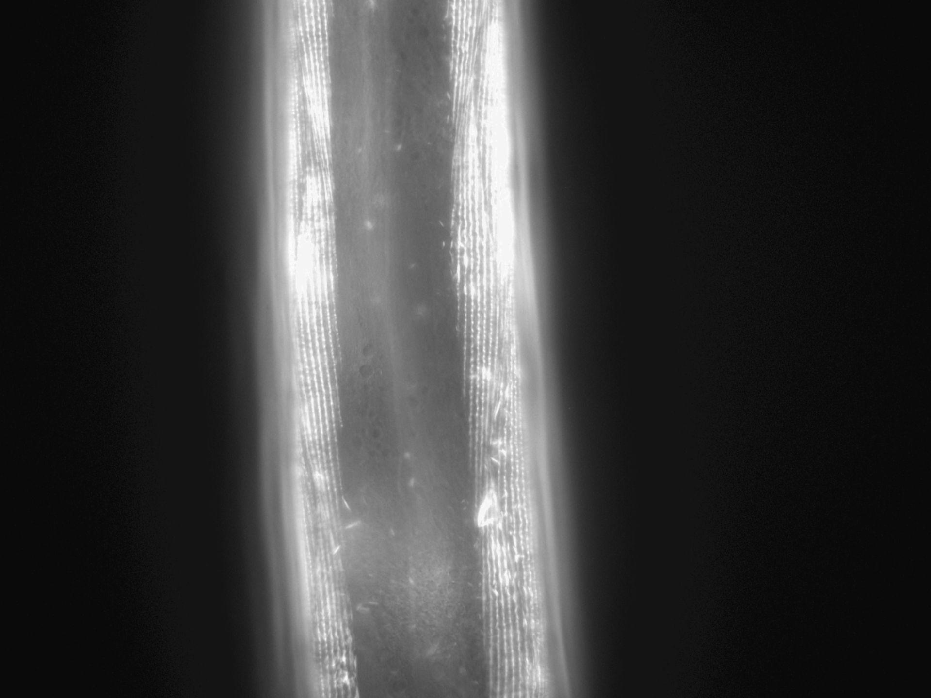 Caenorhabditis elegans (Actin filament) - CIL:1032