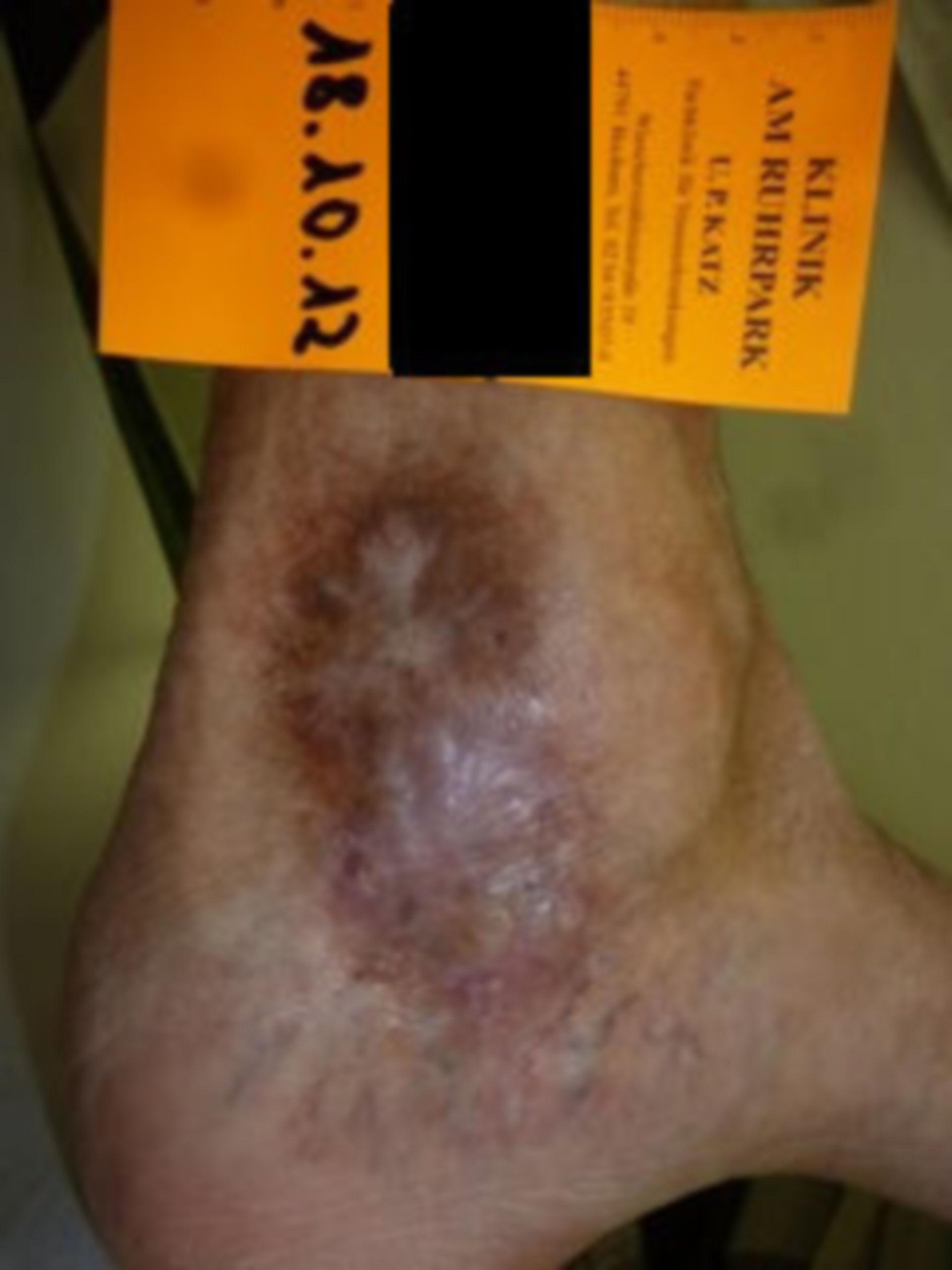 IVC con úlcera de atrofia blanca (05) progreso de curación 18.10.2012
