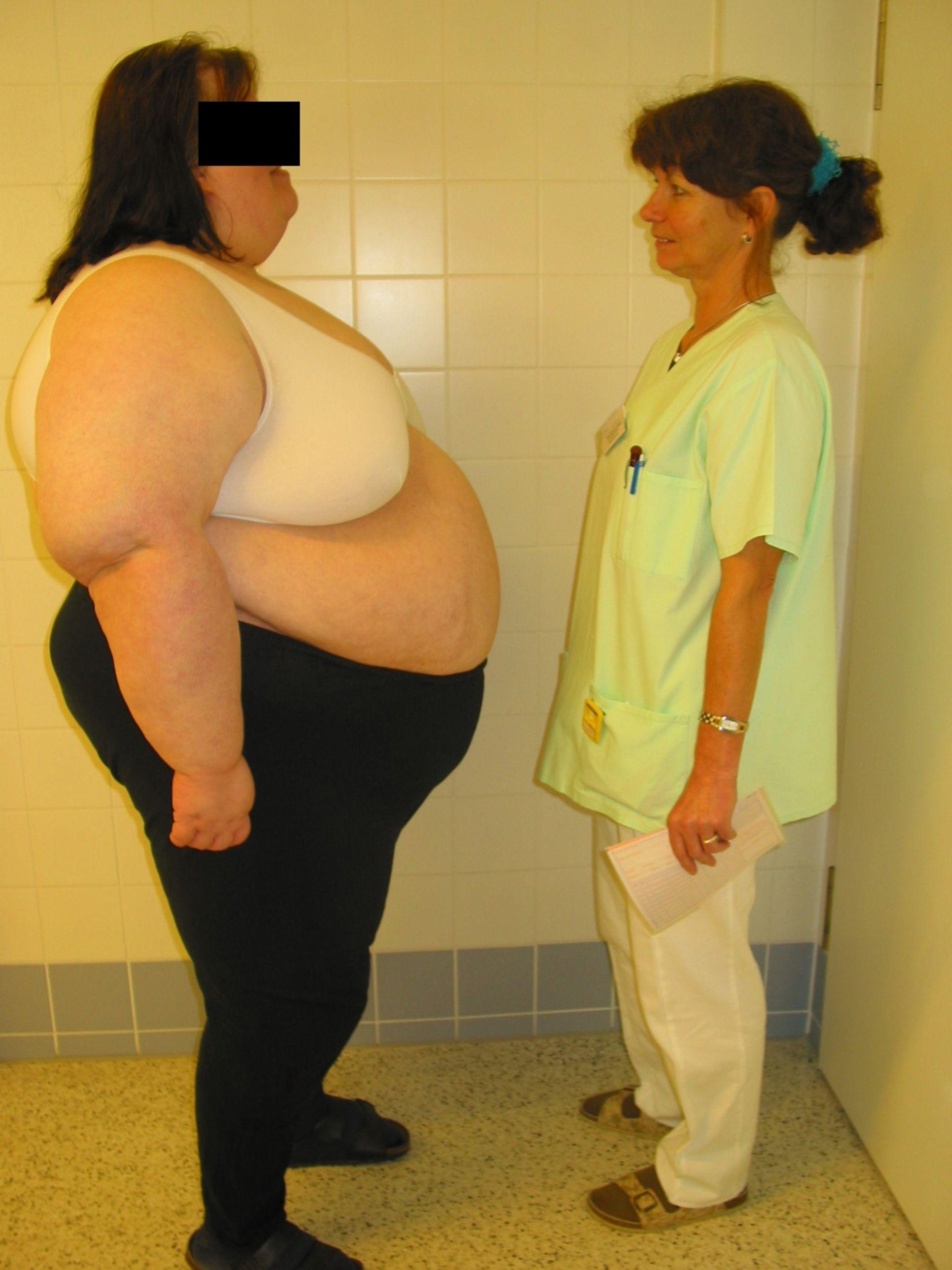 Adiposità - 215 kg