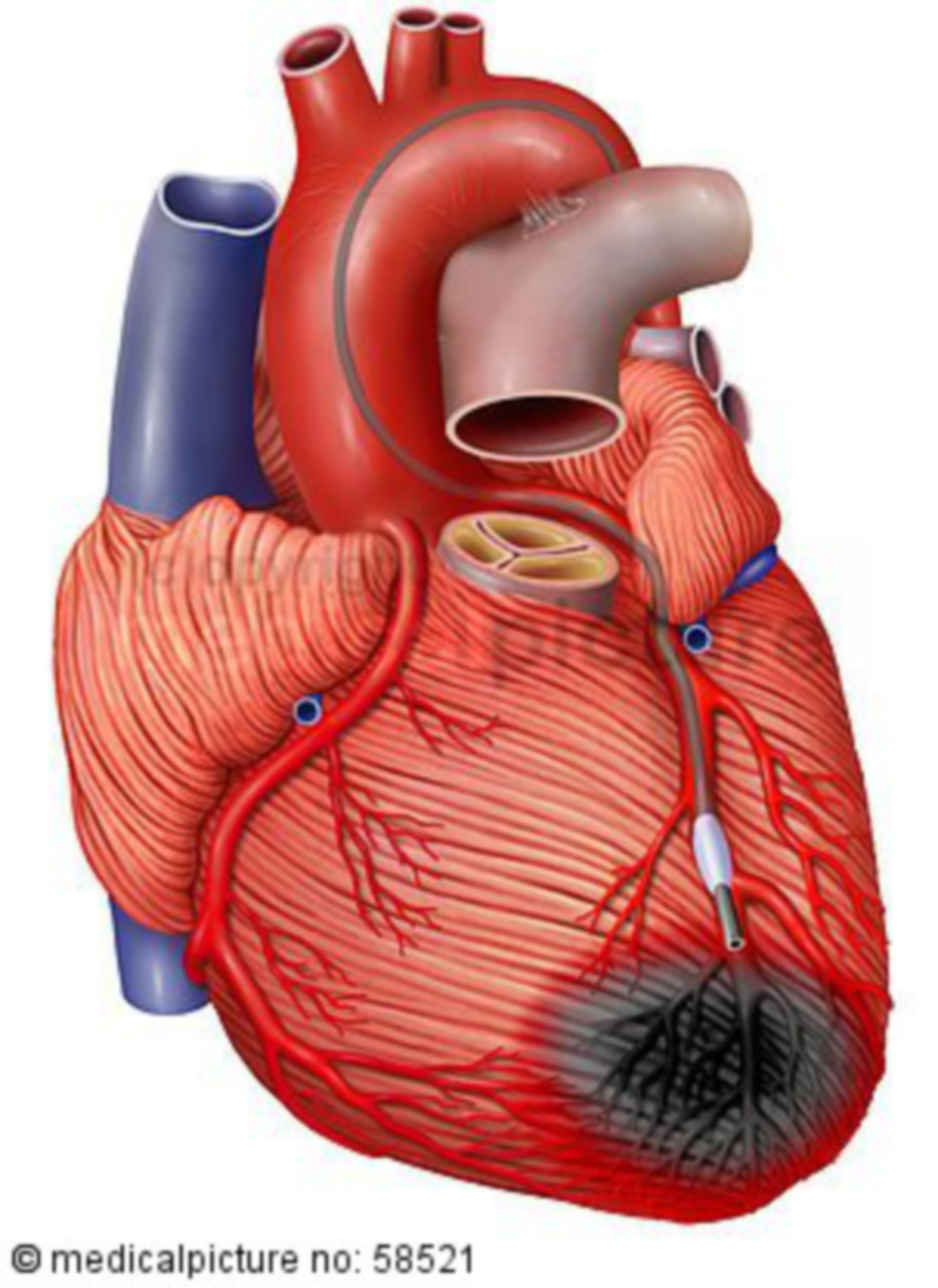 Cardial stem cell therapy