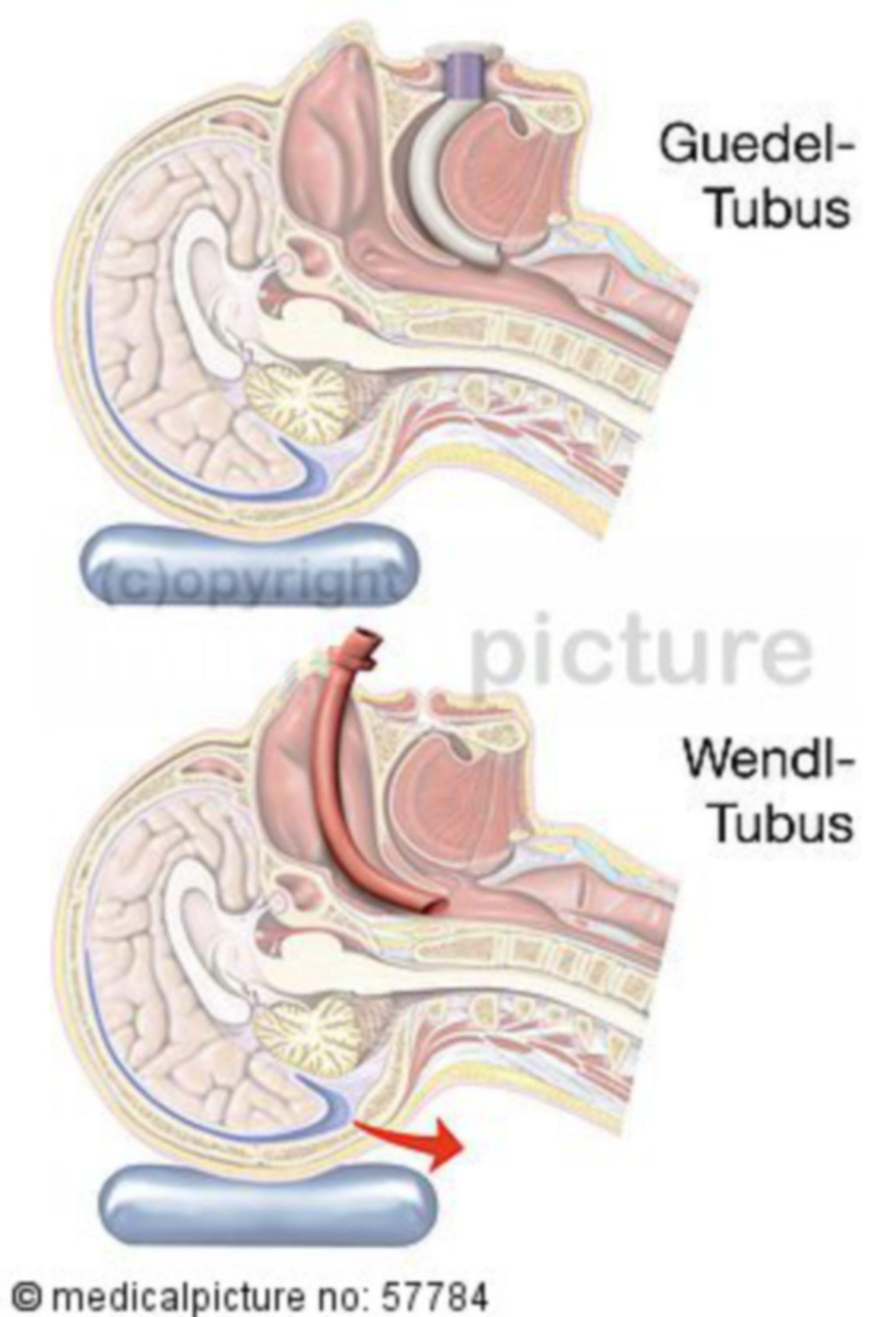 Vergleich von Guedel- und Wendle-Tubus