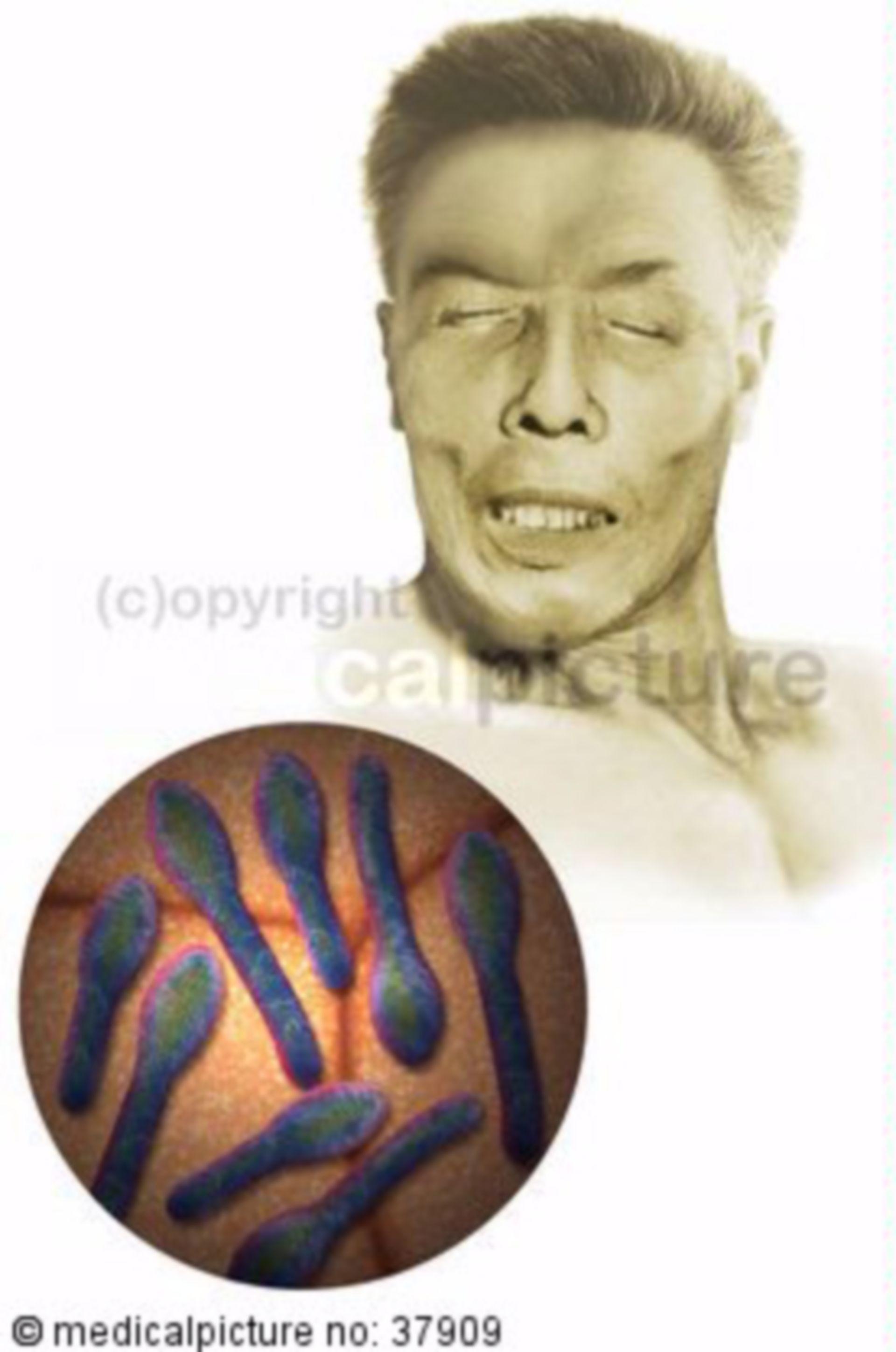 Tetanus bacteria, face