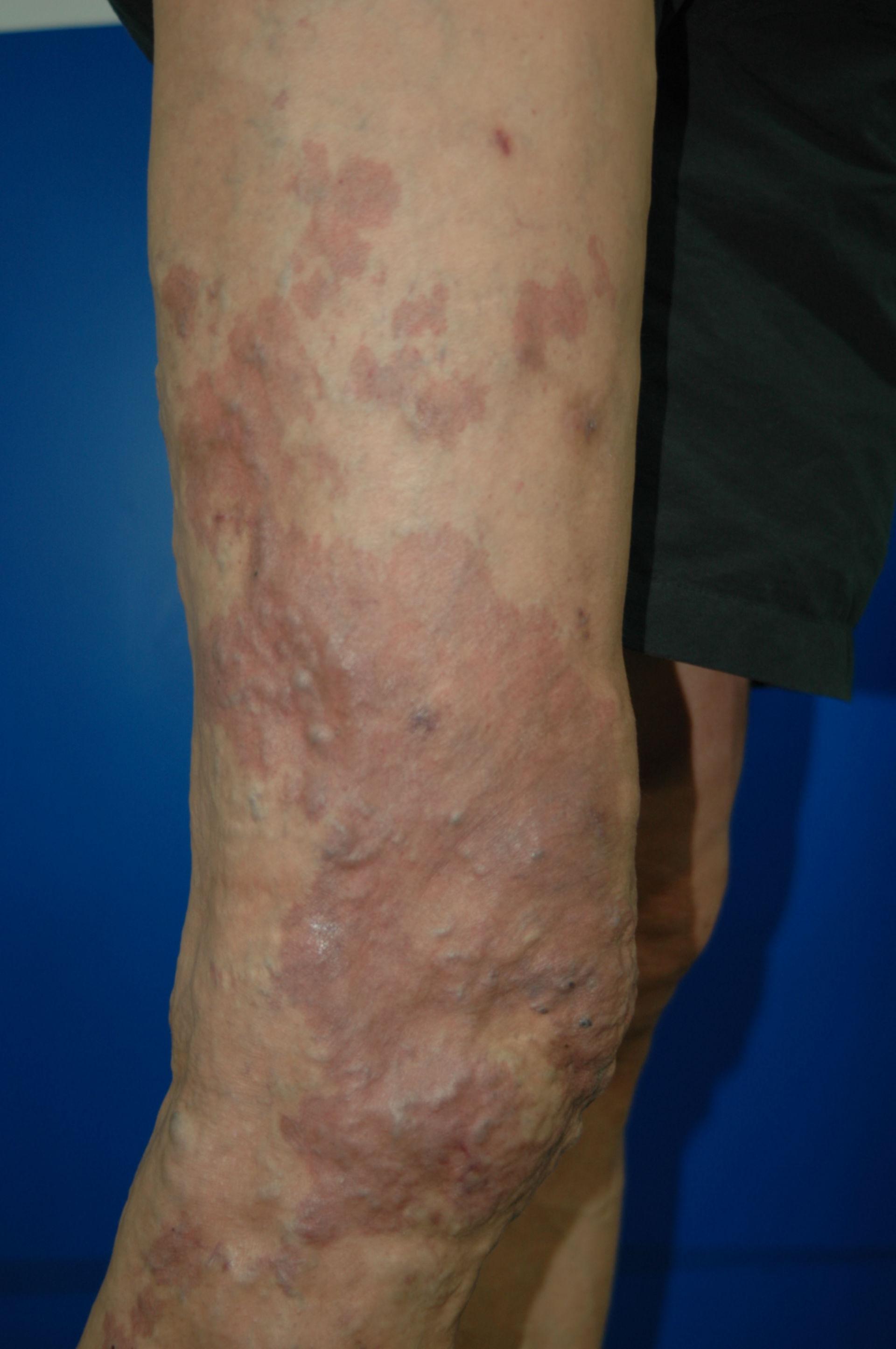 Klippel-Trénaunay-Syndrom postop. Aufnahme von Dr. Ykshim 4