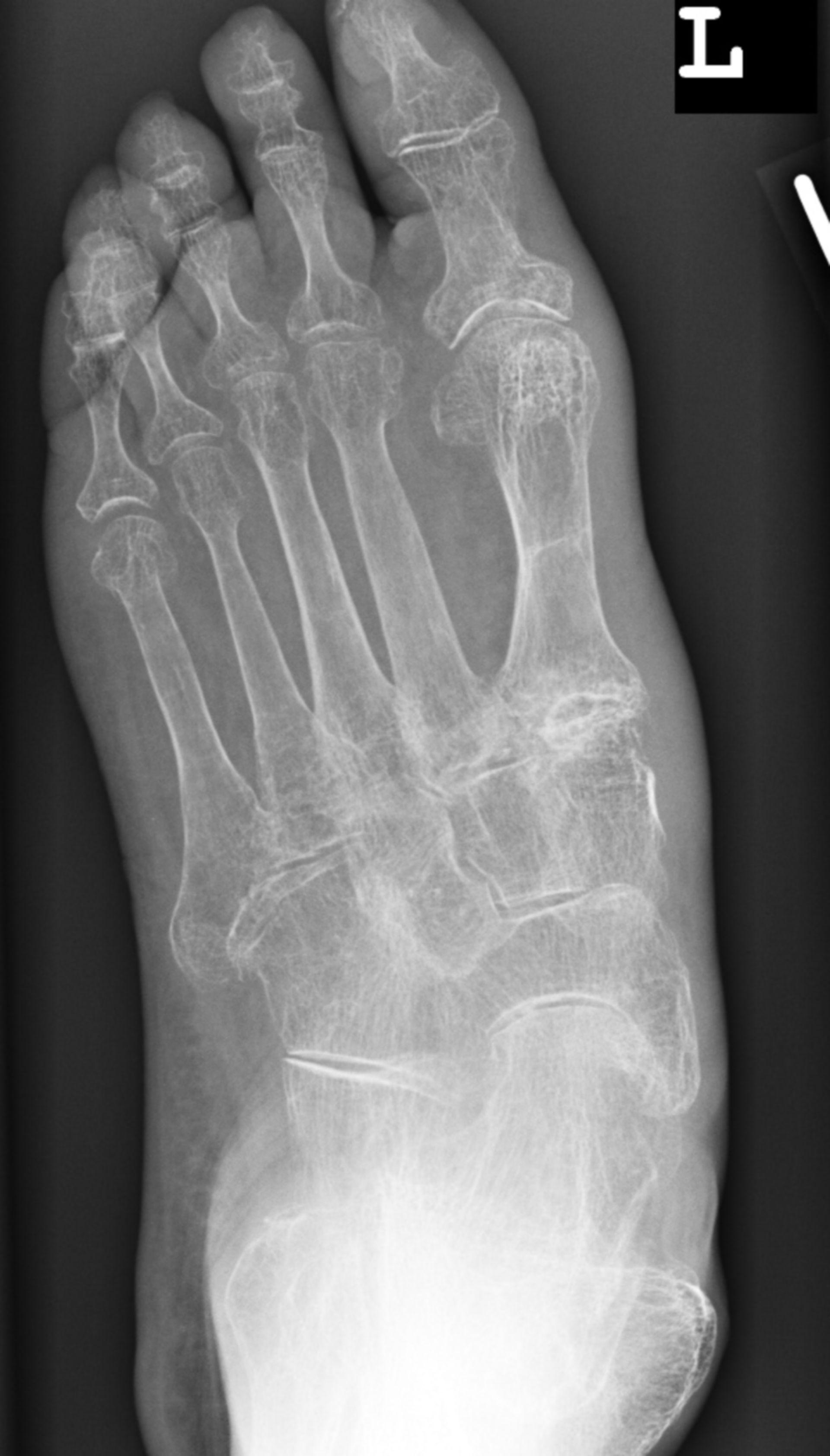 Pie - osteoporosis severa