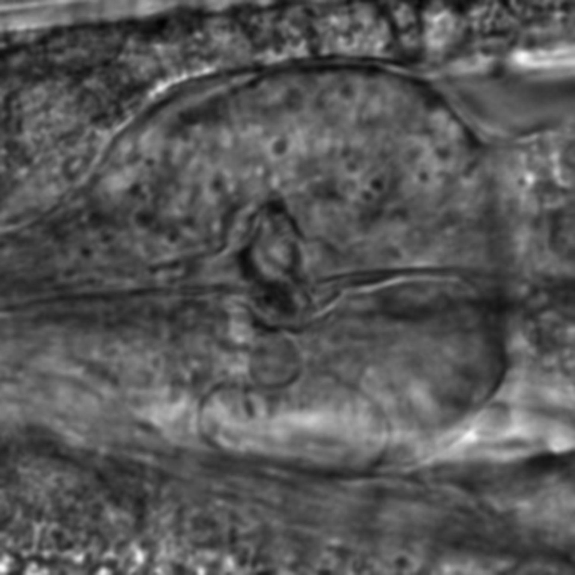 Caenorhabditis elegans - CIL:2845