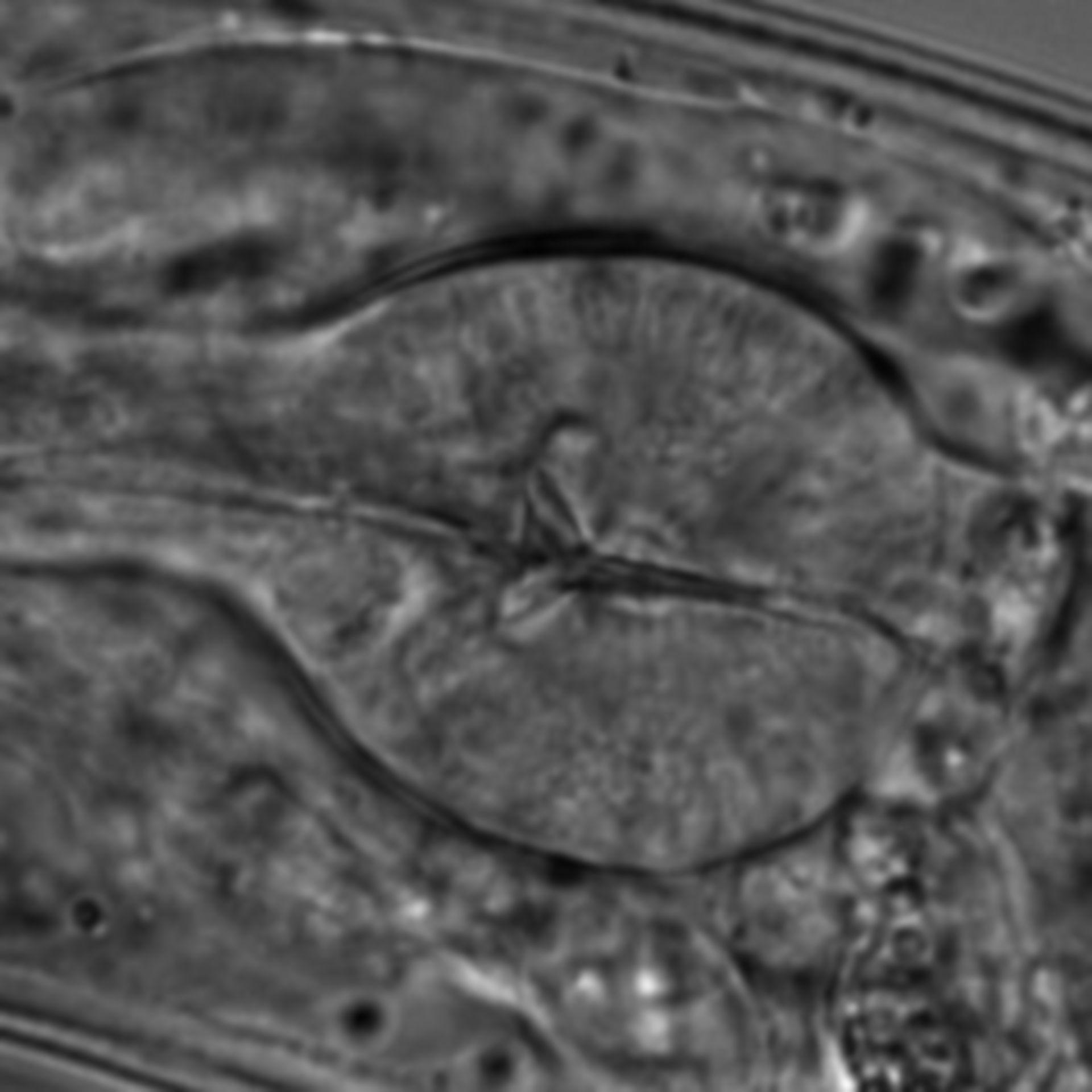 Caenorhabditis elegans - CIL:1592
