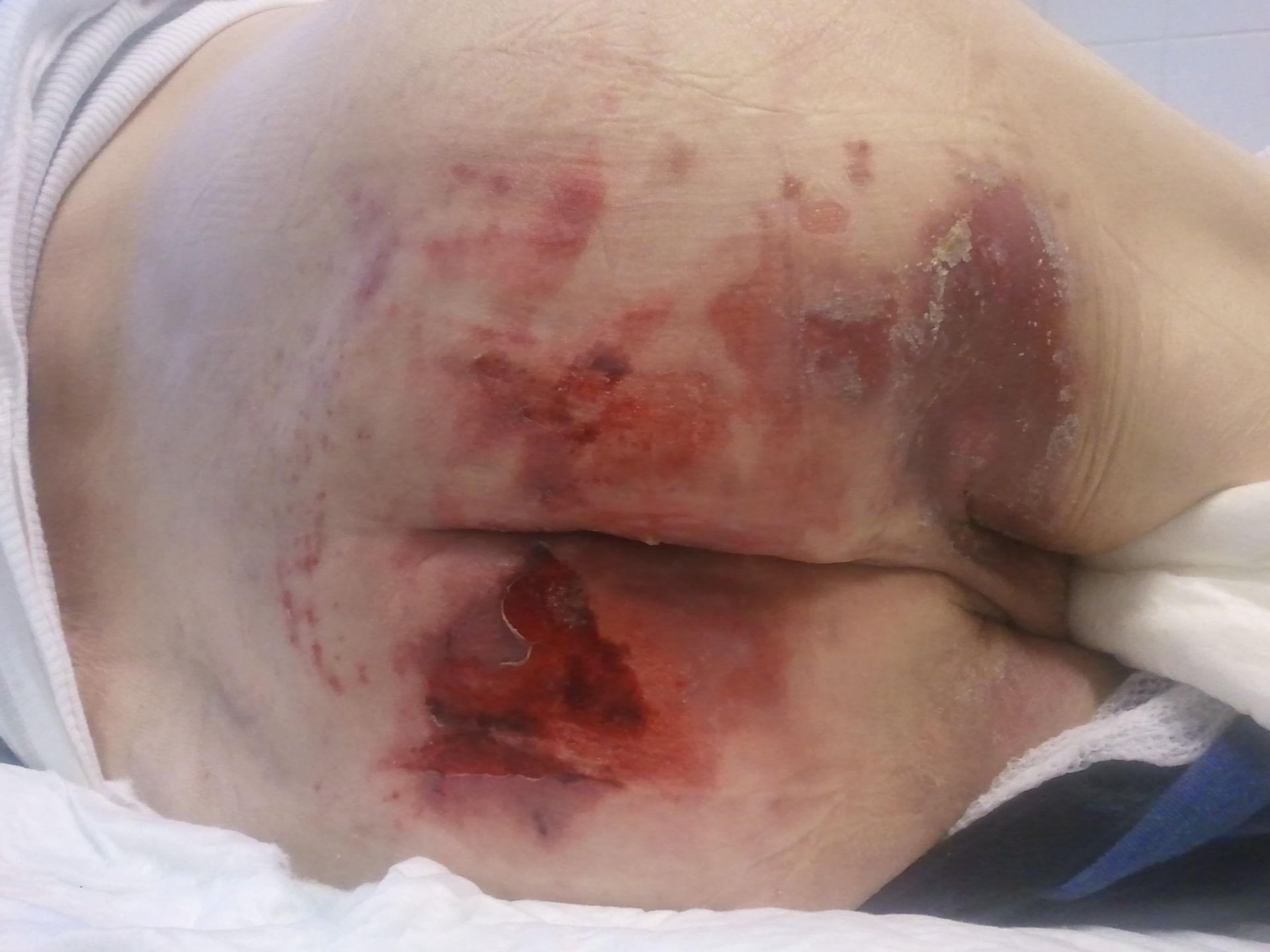 Ulcera da decubito