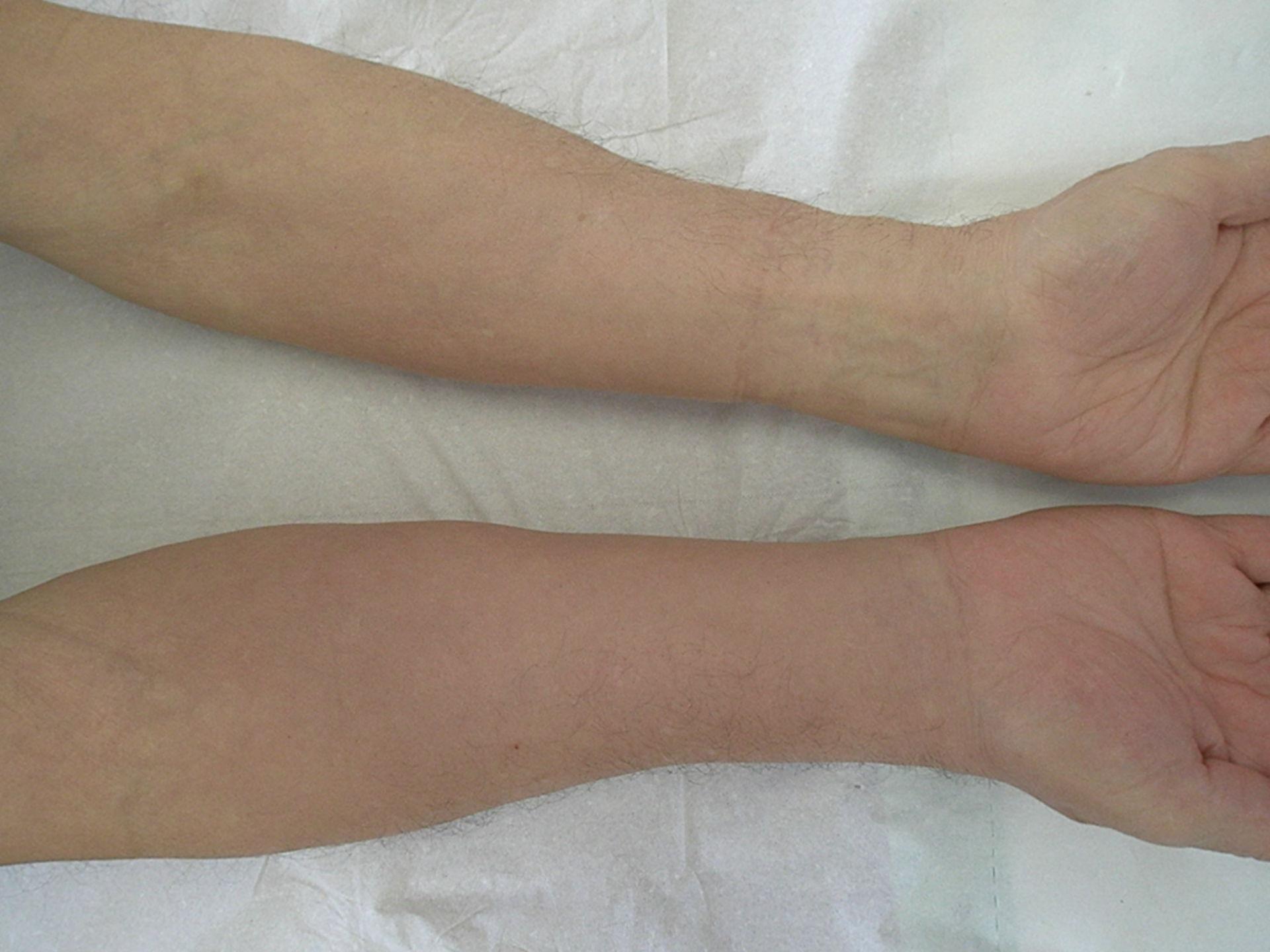 Lymphödem bei rheumatoider Arthritis