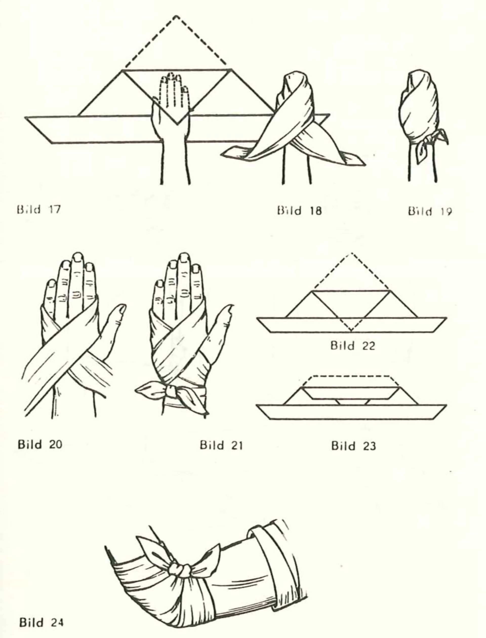 Emergency dressing of arm and hands