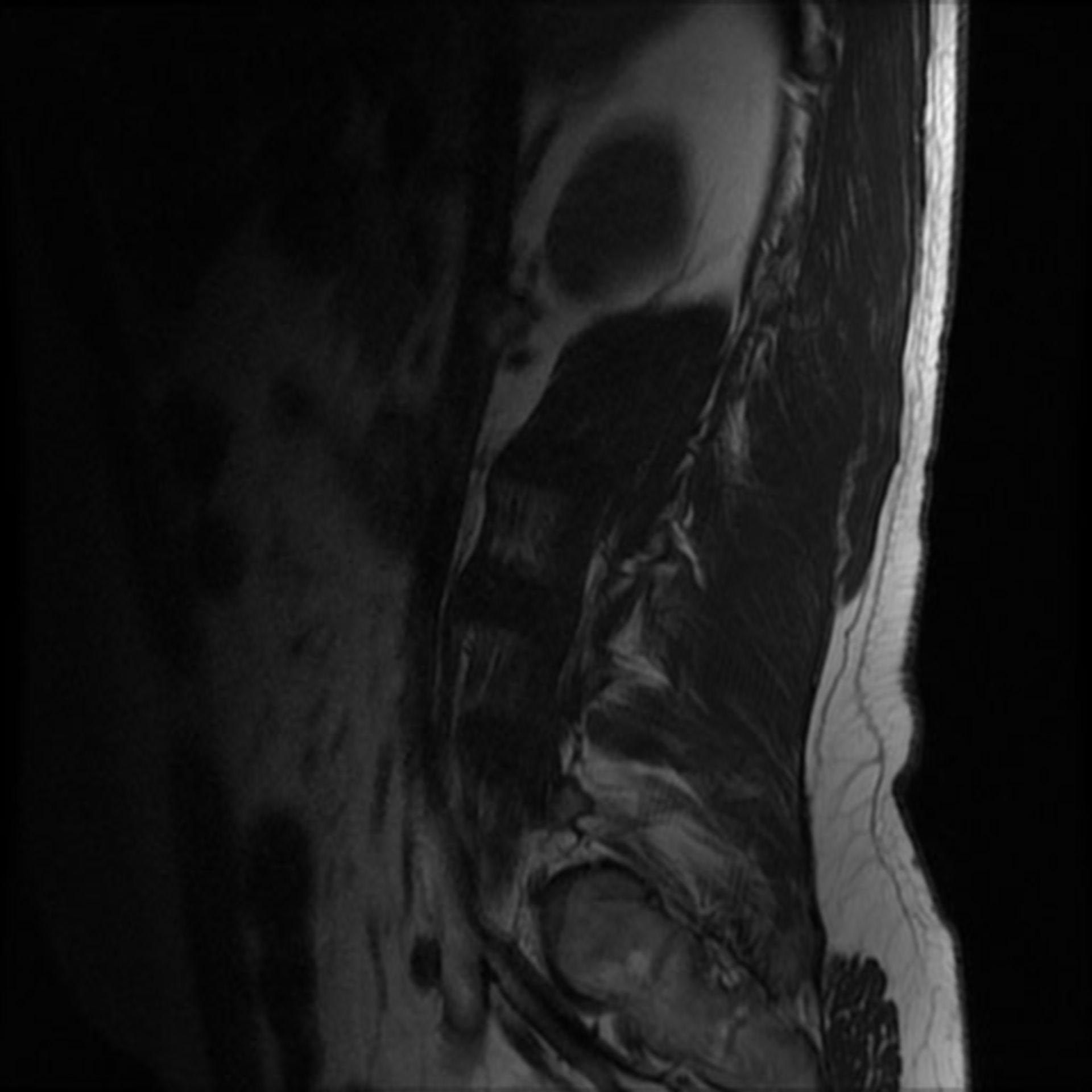 MRI Lendenwirbelsäule