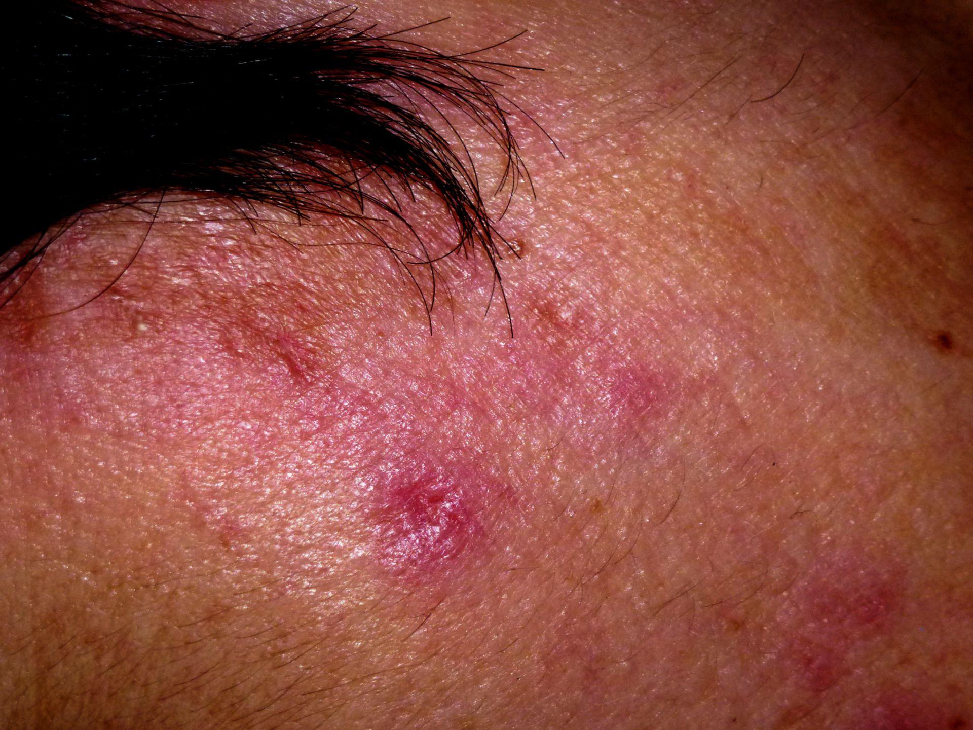 Lupus (1)