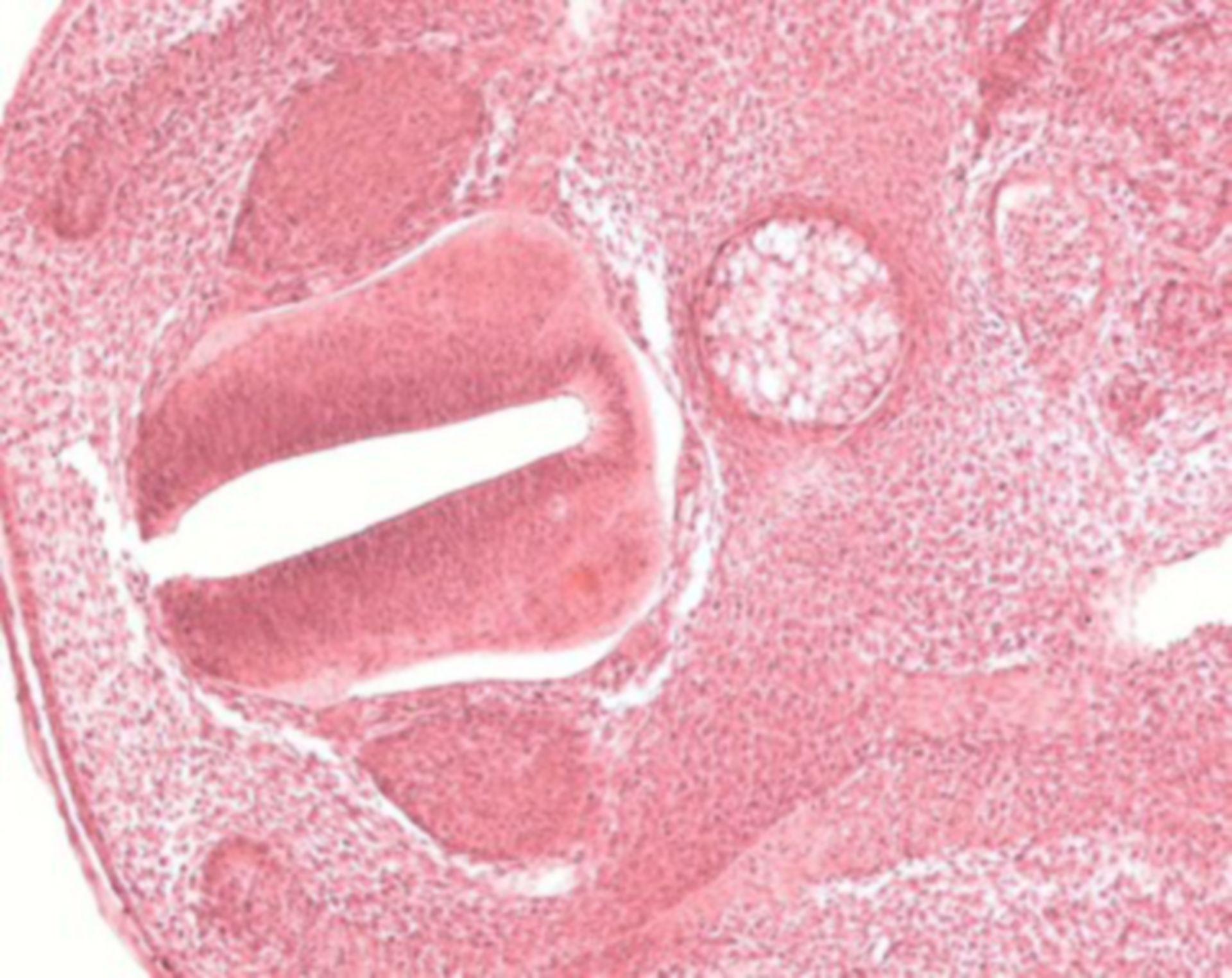 Mesenchymales Bindegewebe Hühnerembryo b