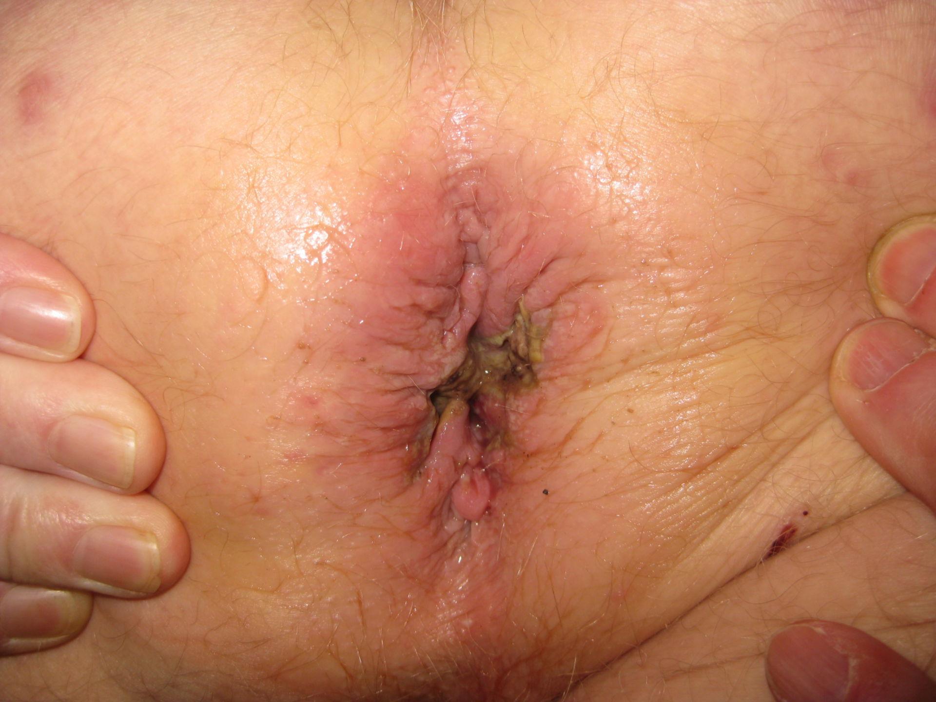 Hämorrhoidektomie - 5 Tag postoperativ