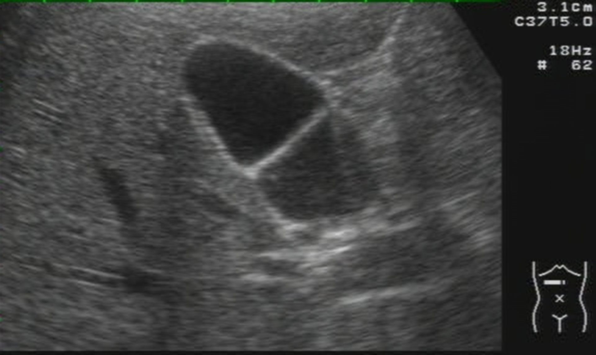 Gallbladder septum