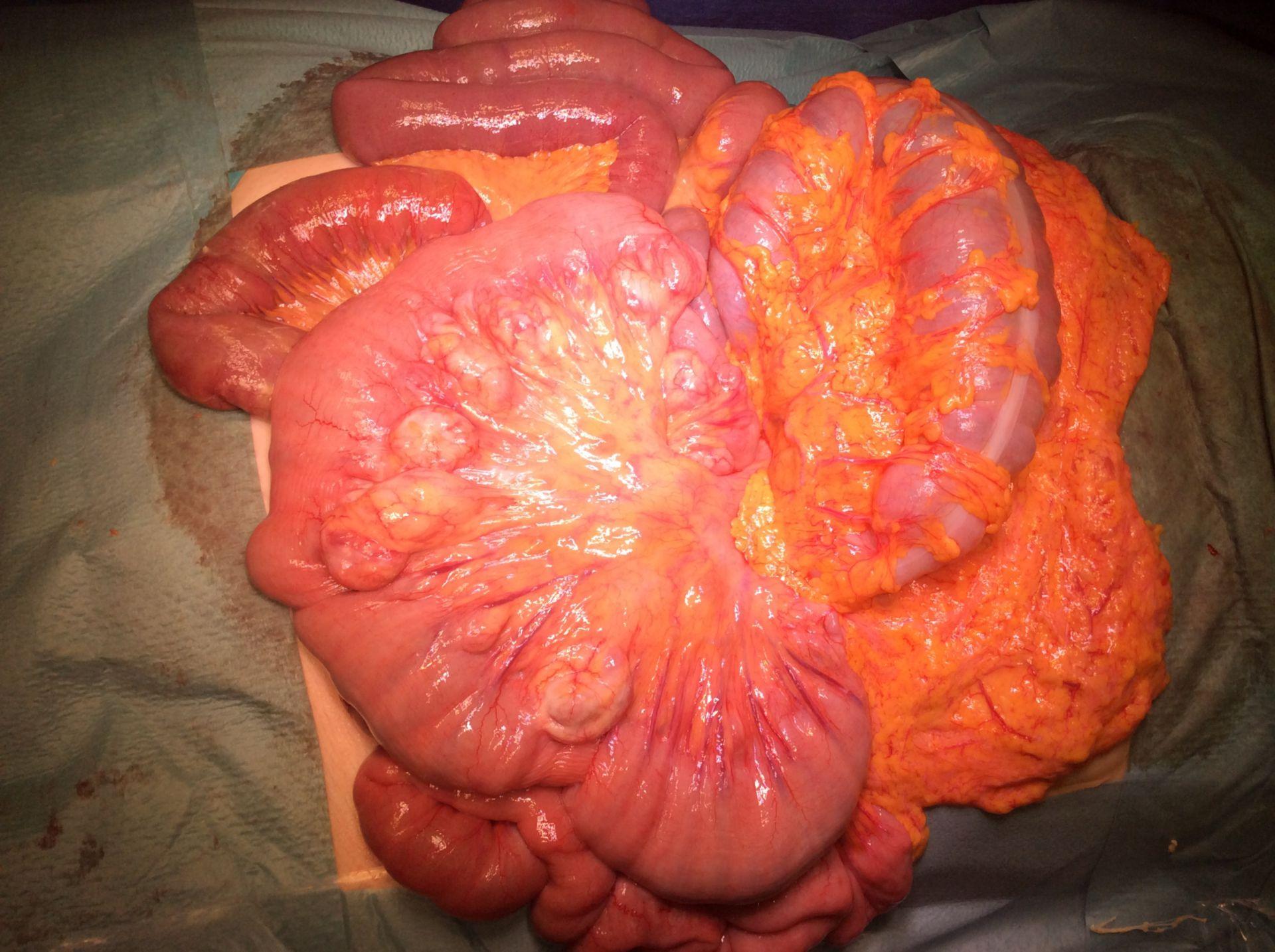 Massive Dünndarmdivertikel mit Entzündung (2)