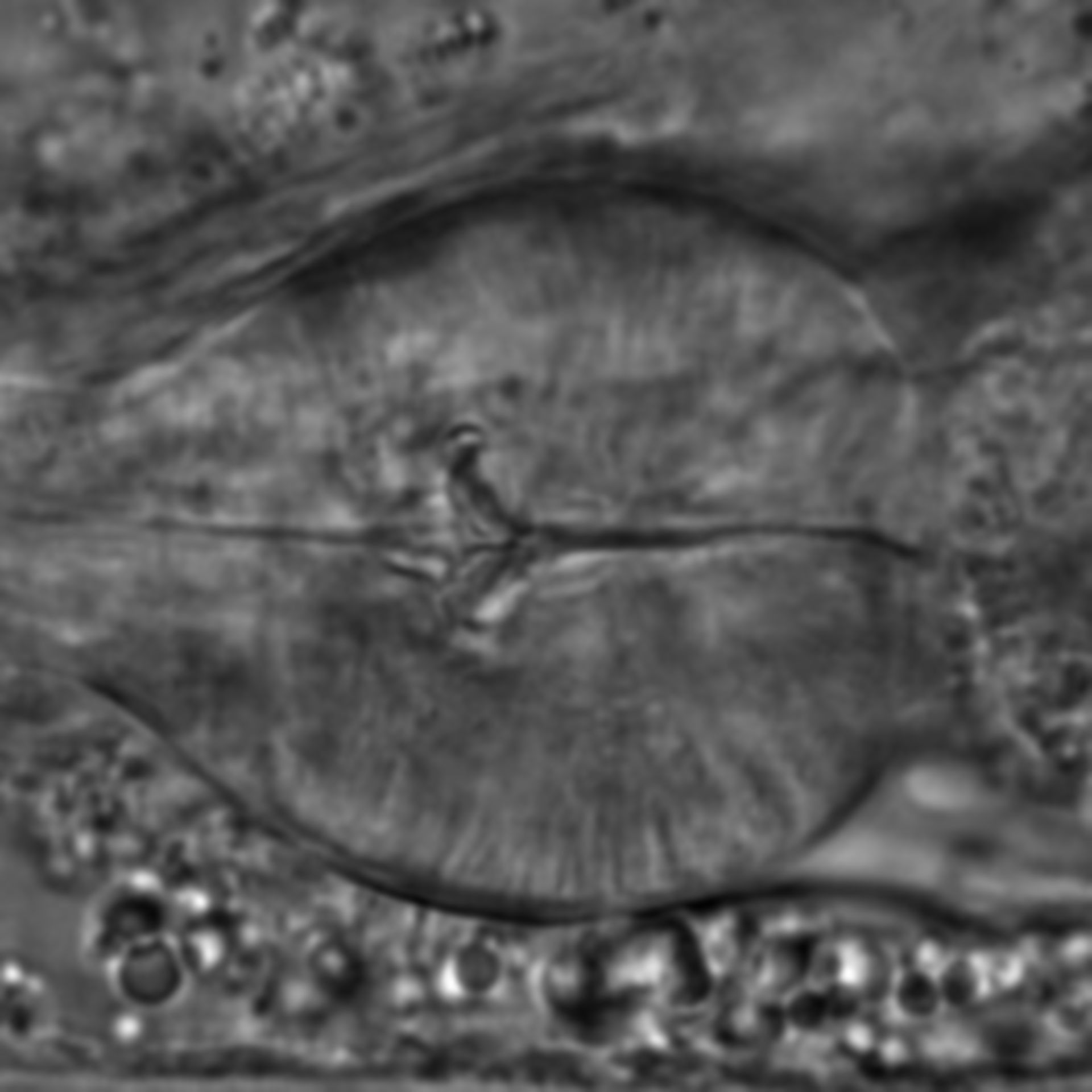 Caenorhabditis elegans - CIL:1738