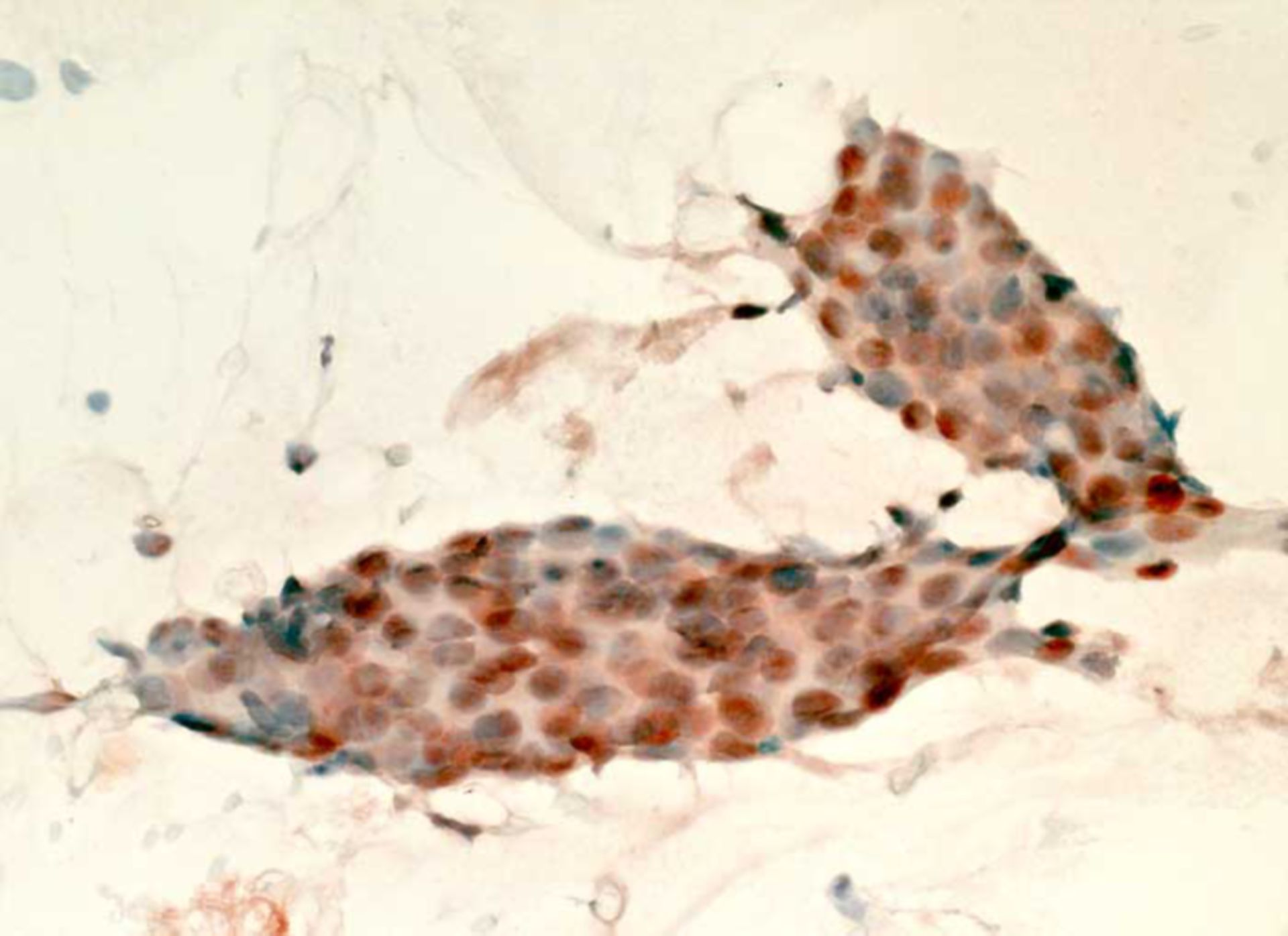 Invasive ductal carcinoma of the breast: lymph node metastasis