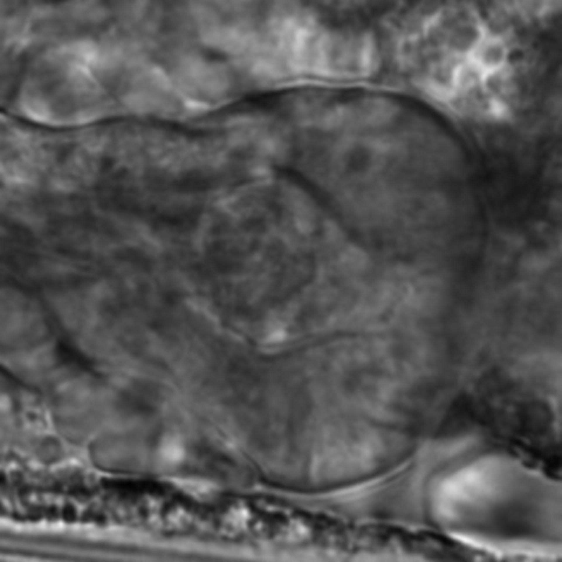 Caenorhabditis elegans - CIL:2839