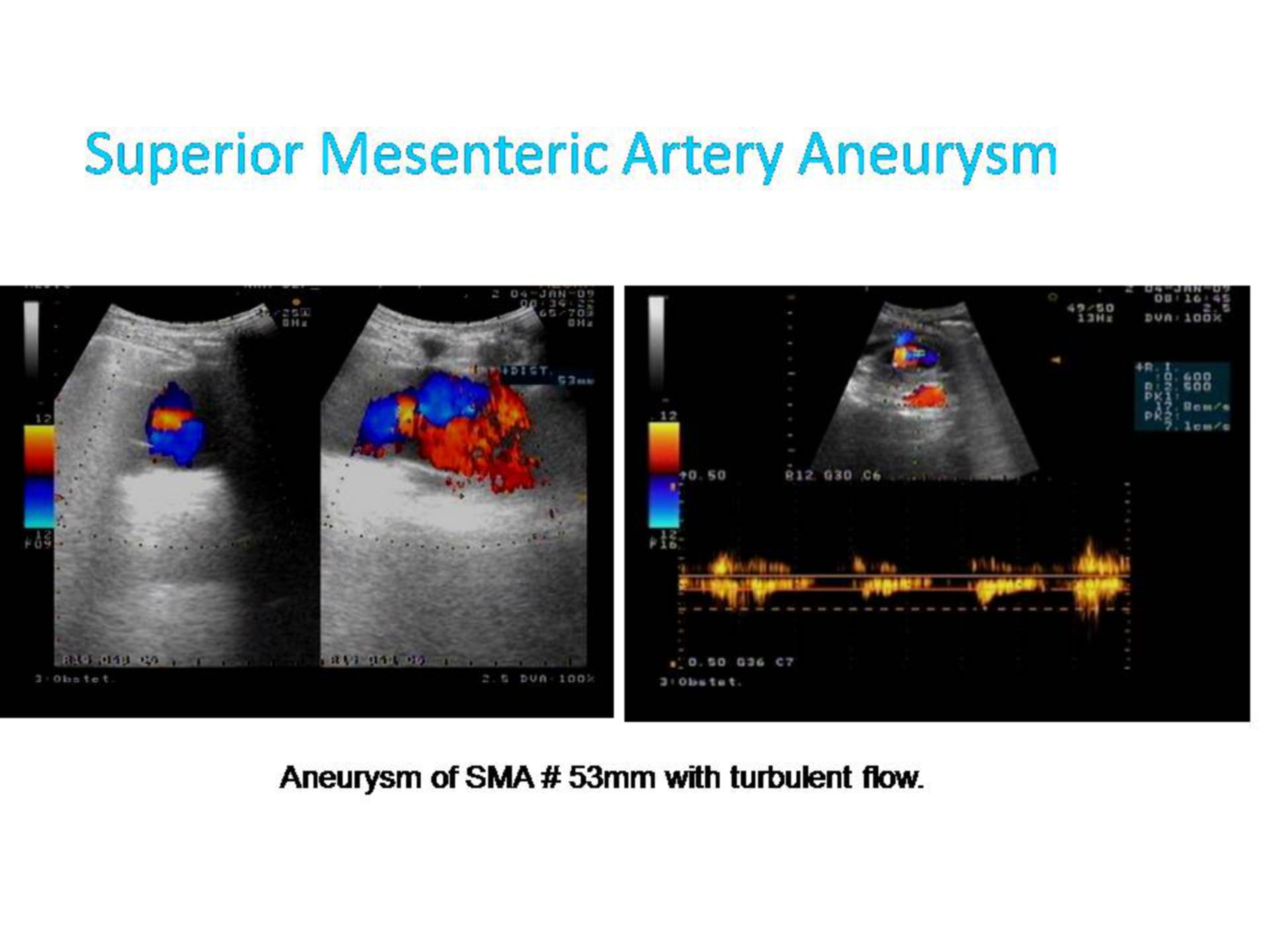Aneurysma in der Arteria mesenterica superior (1)