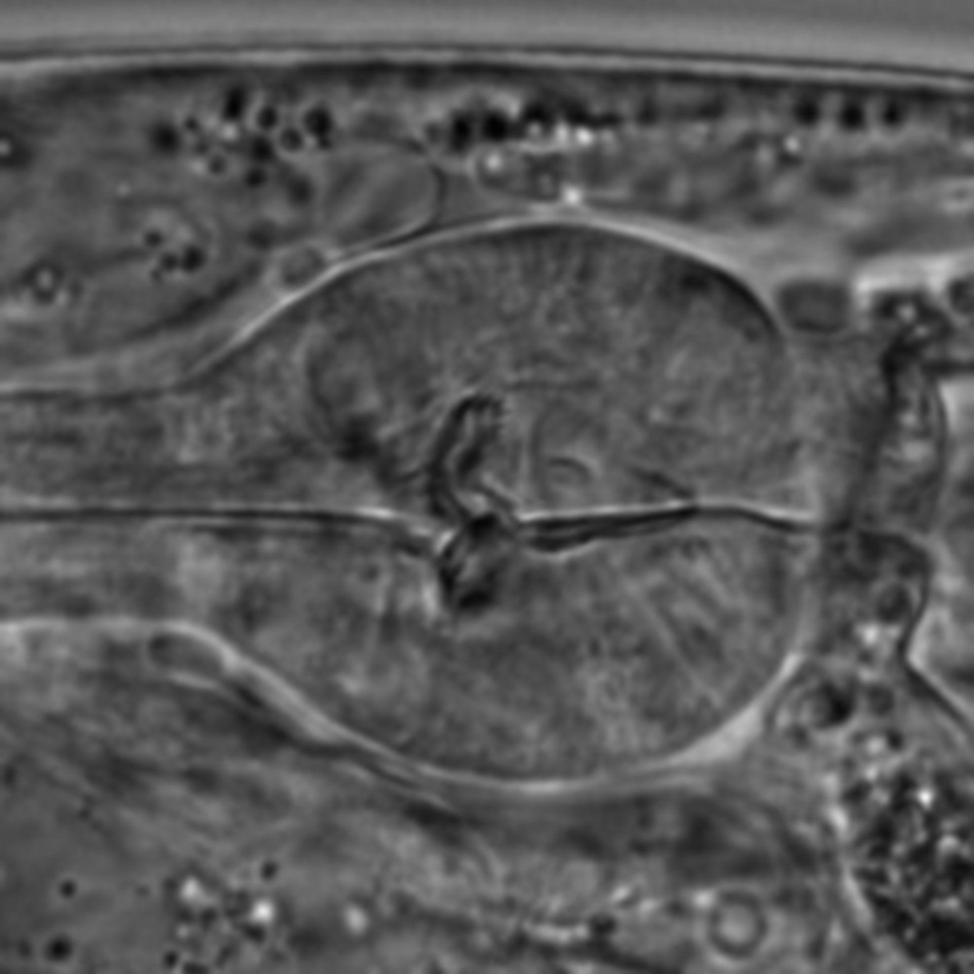 Caenorhabditis elegans - CIL:1594
