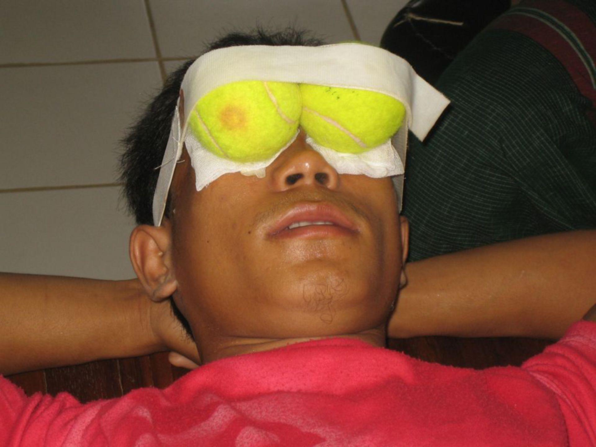 Paciente post inyección retrobulbar