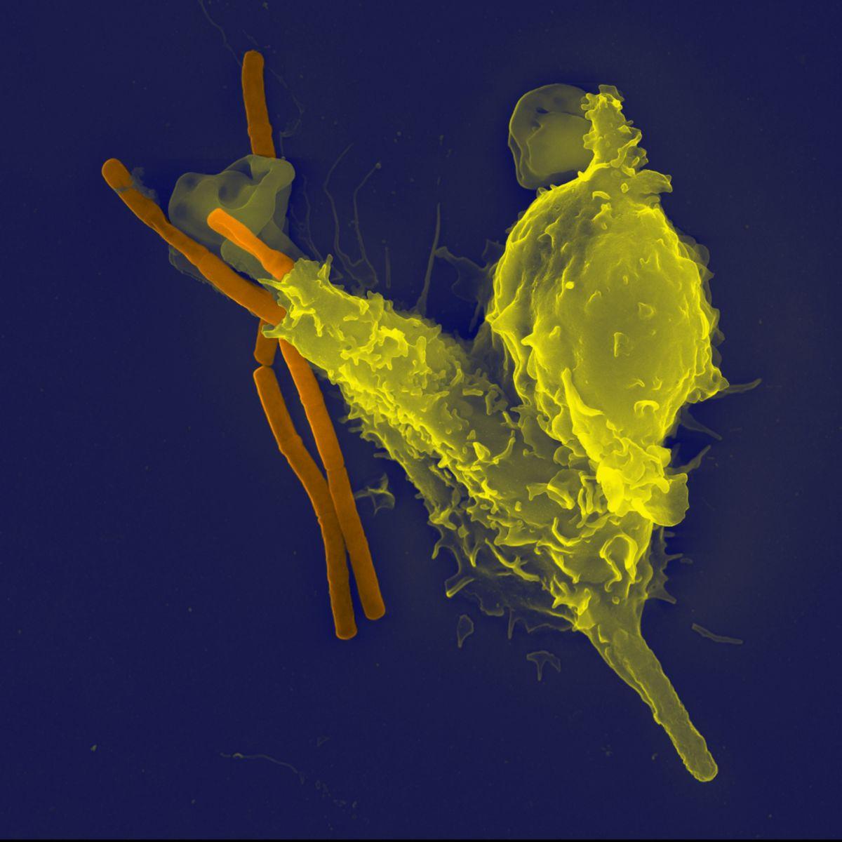 Neutrophiler Granulozyt im Einsatz. Quelle: siehe Footer