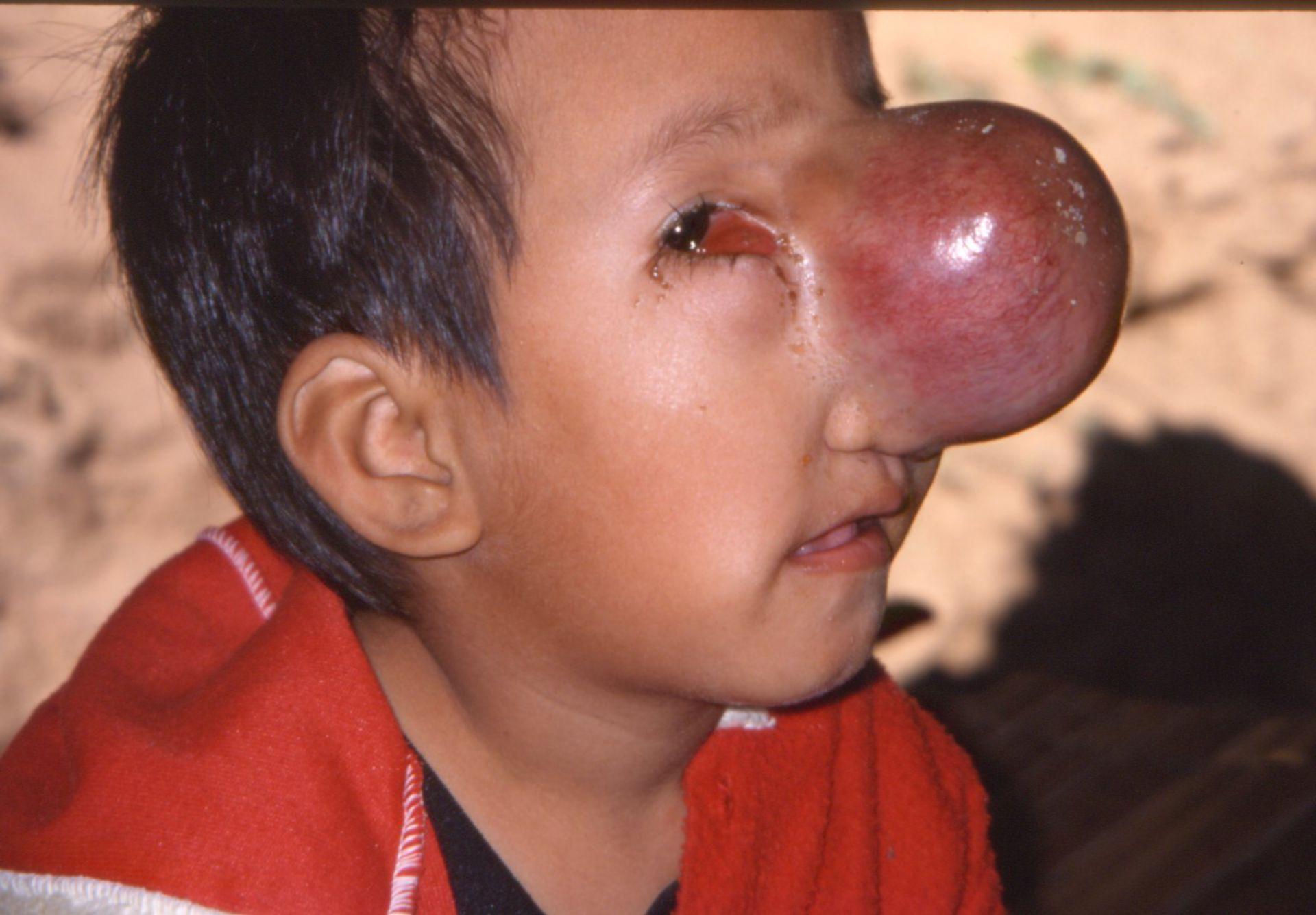 Boy with meningomyelocele