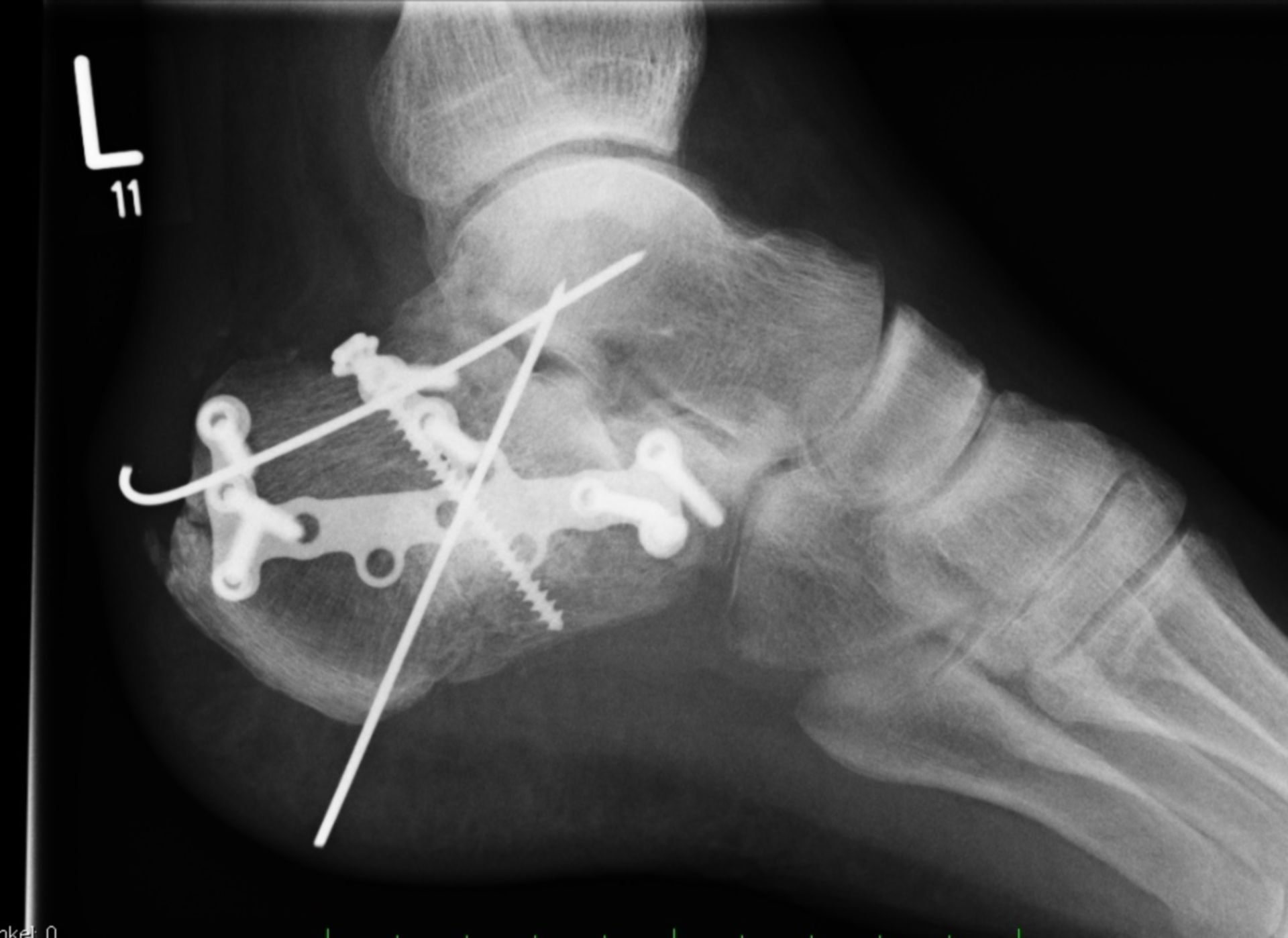 Fractura del calcáneo, pie izquierdo - Osteosíntesis