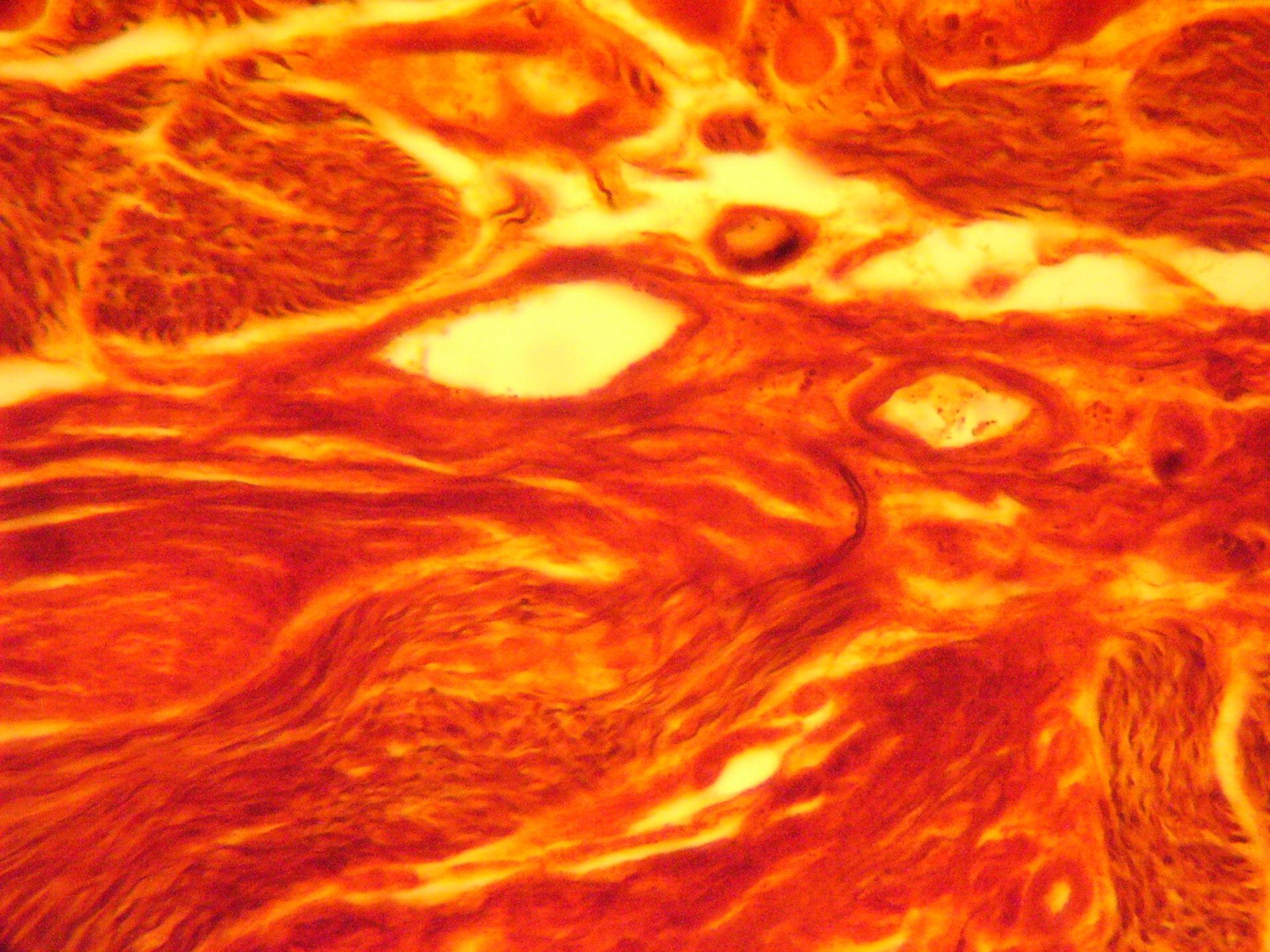 Multipolar ganglion cell