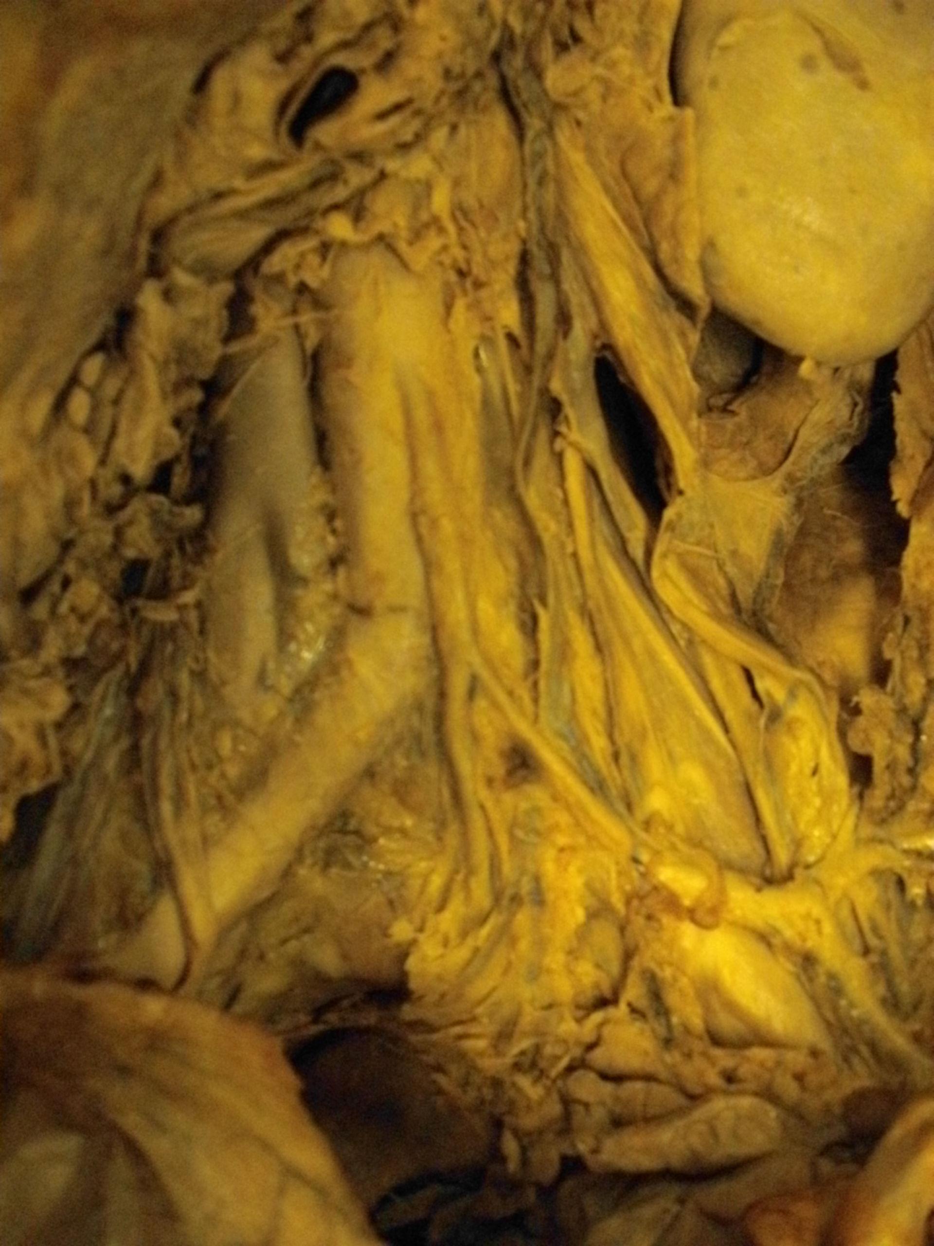 aortic bifurcation
