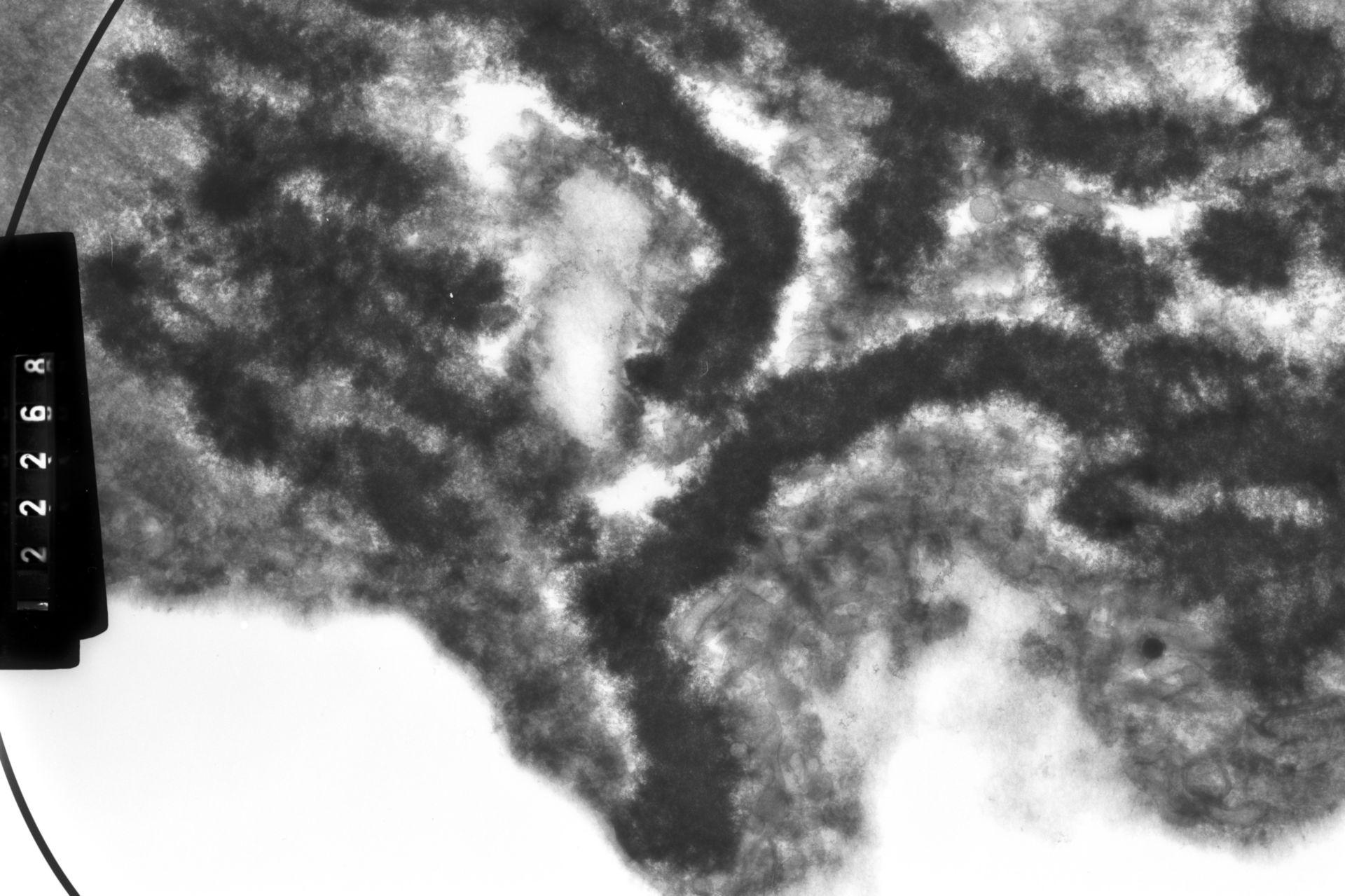 Haemanthus katharinae (Nuclear chromosome) - CIL:13191