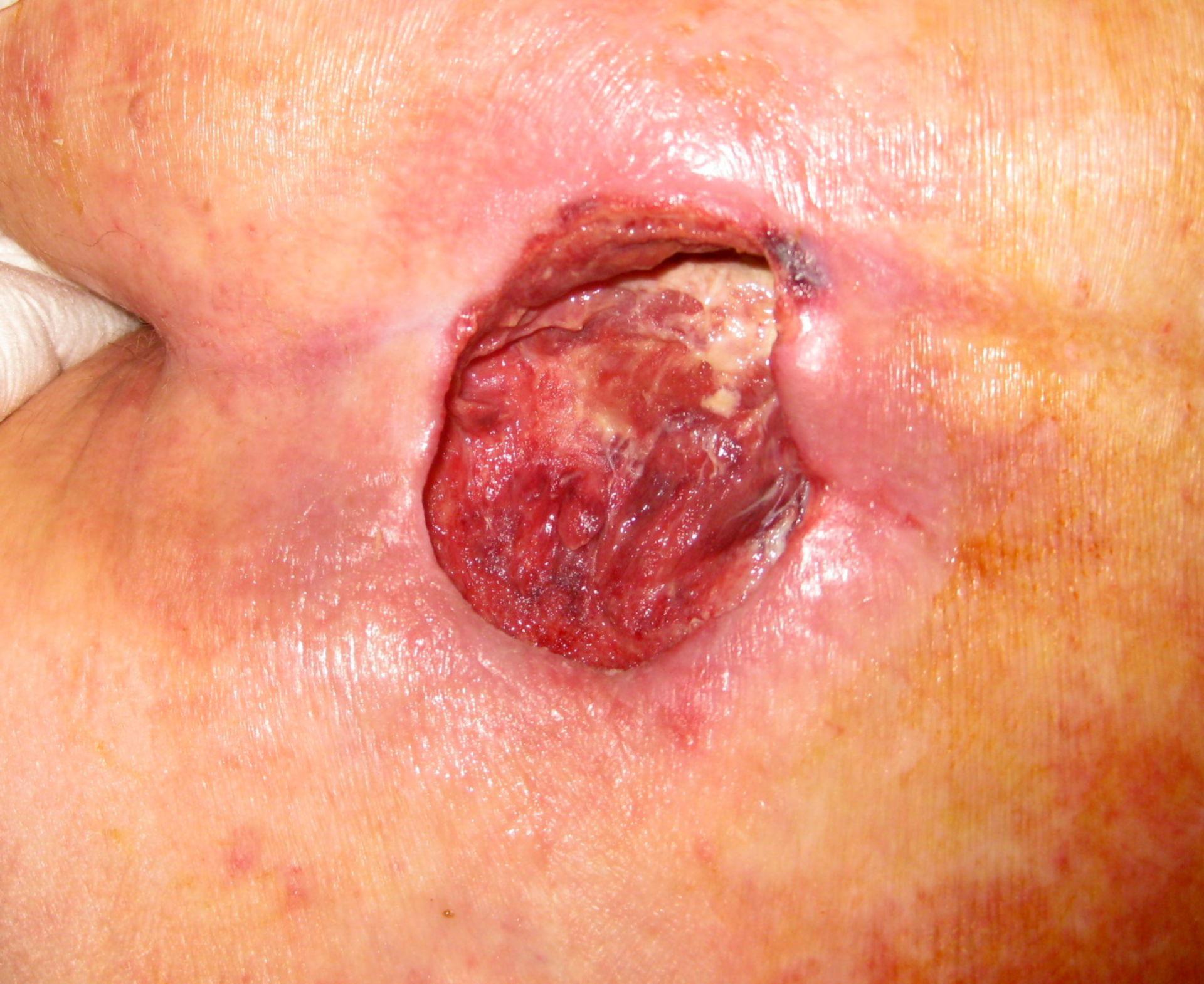 Decubital ulcer grade III - debridement