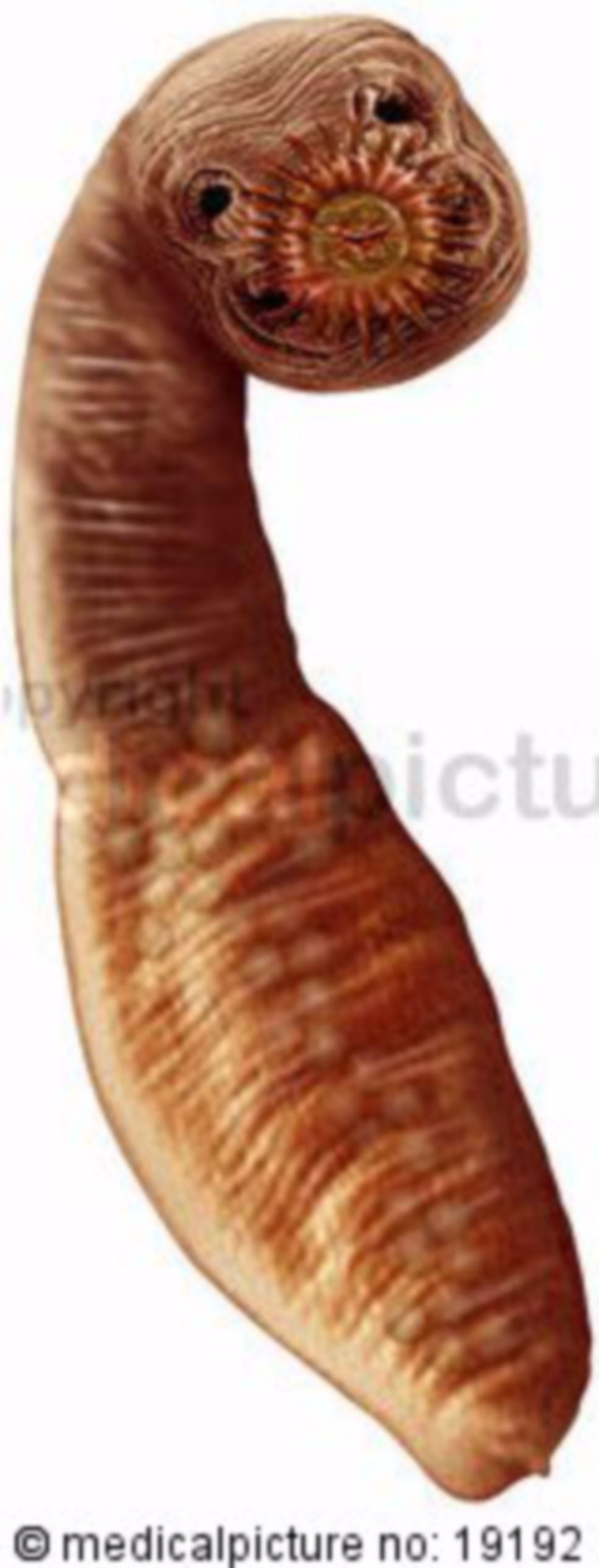 Fox tapeworm, echinococcus multilocularis