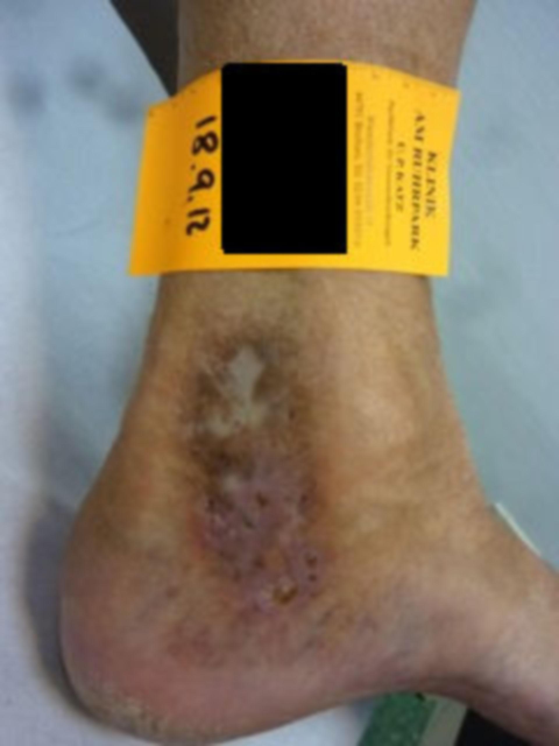 IVC con úlcera de atrofia blanca crónica (04), 18.09.12
