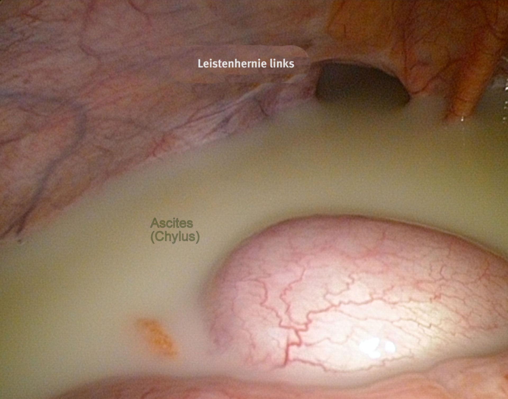 Ascitis (con quilo) - laparoscopia