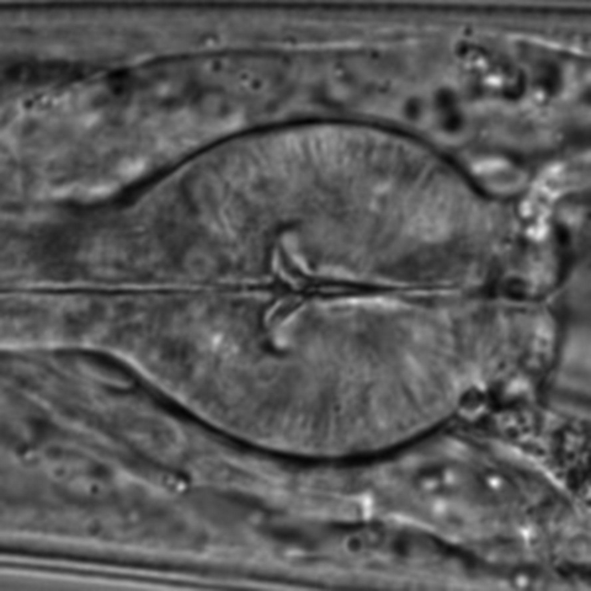 Caenorhabditis elegans - CIL:1599