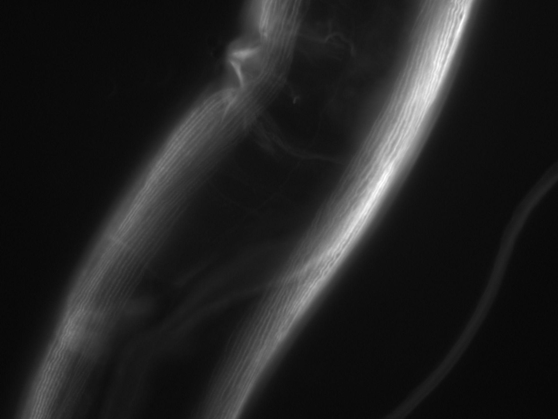 Caenorhabditis elegans (Actin filament) - CIL:1063