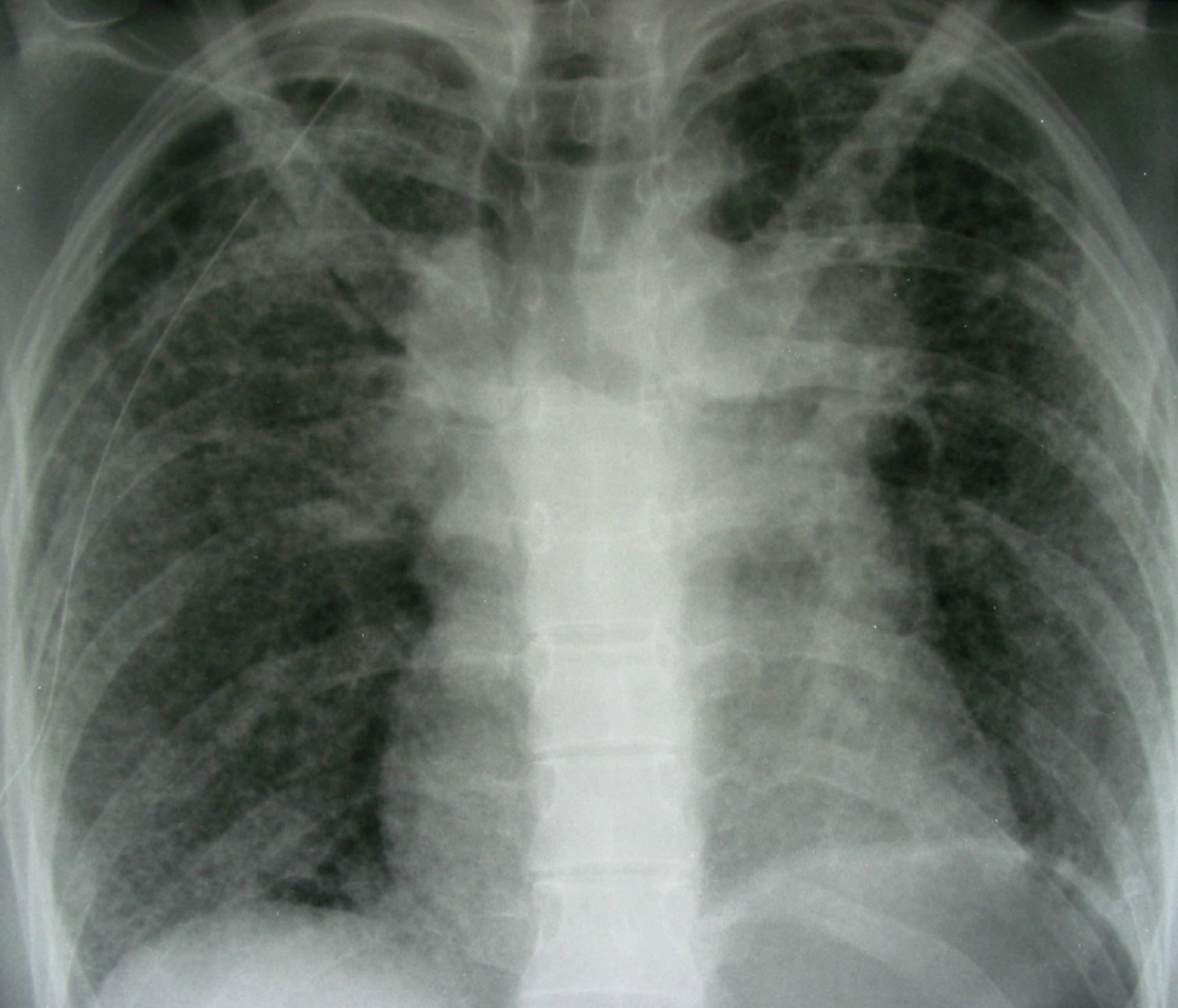 Pneumothorax nach Drainage rechts
