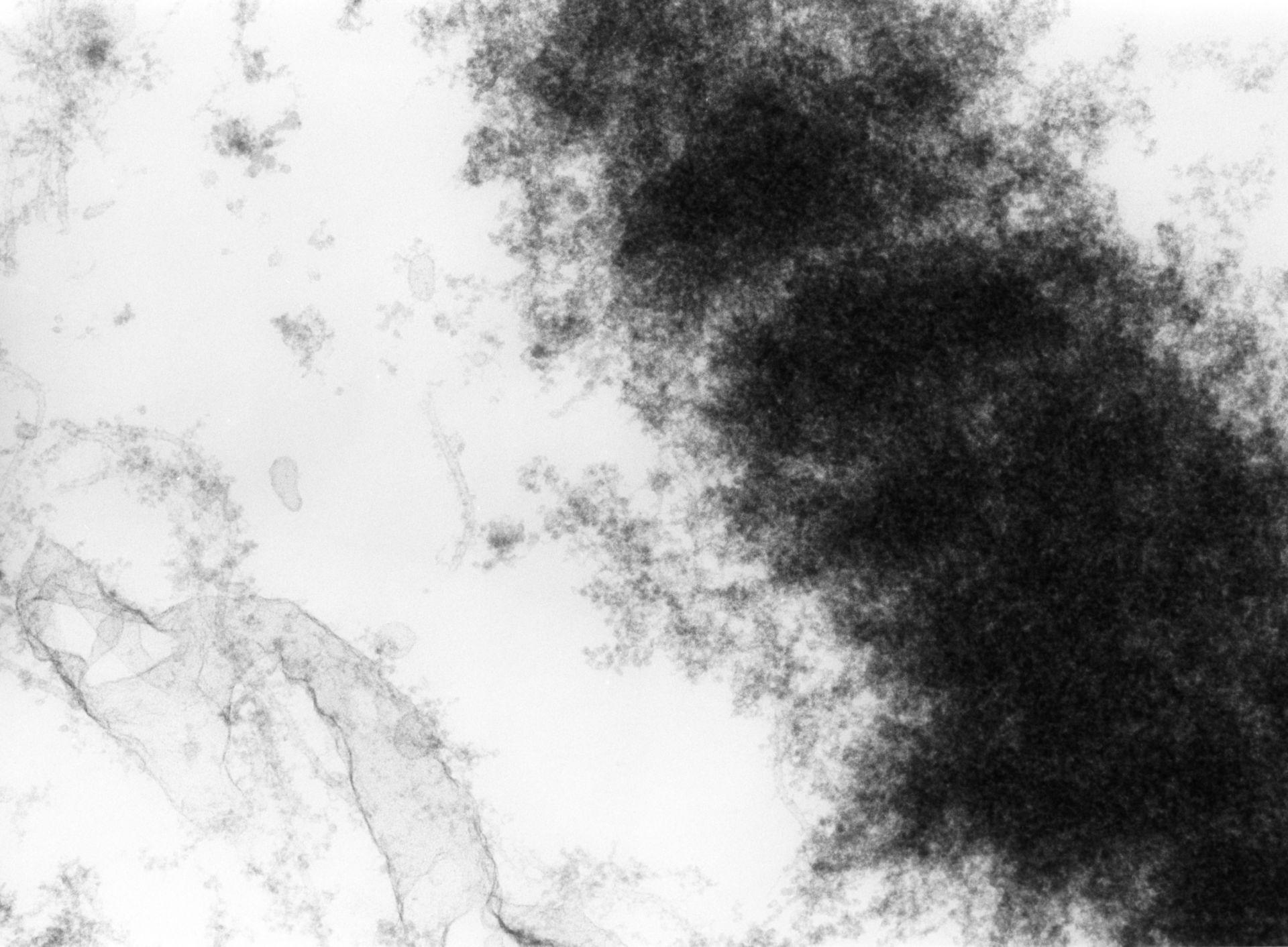 Haemanthus katharinae (Nuclear chromosome) - CIL:11906