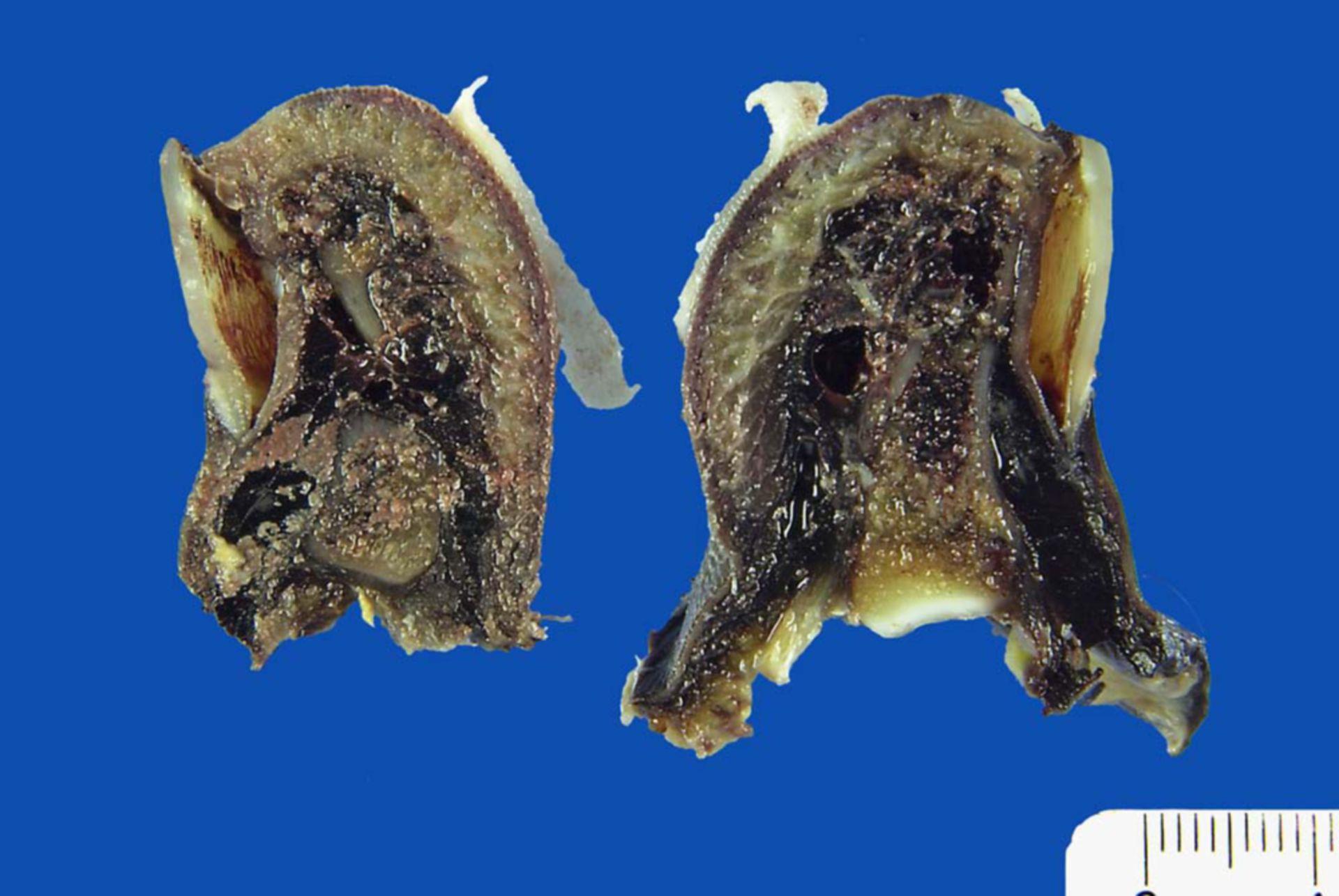 Hemorrhagic necrosis of the big toe after contusion