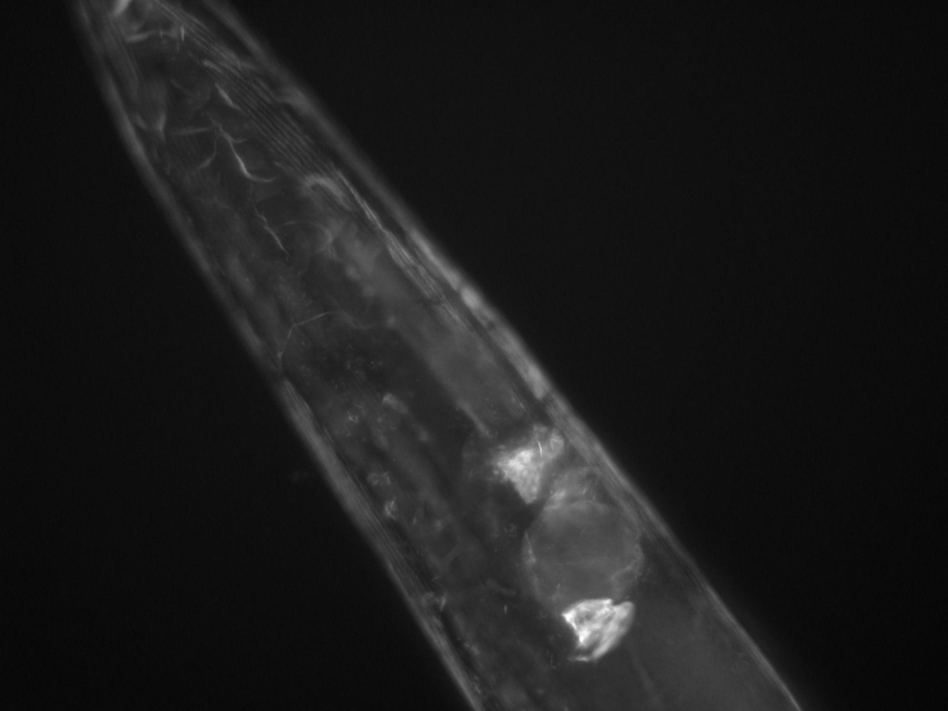 Caenorhabditis elegans (Actin filament) - CIL:1270