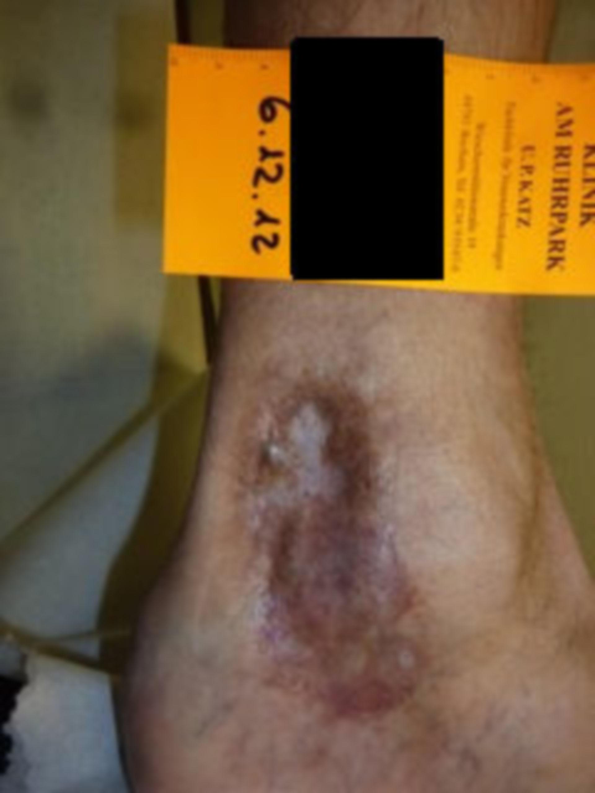 IVC con úlcera de atrofia blanca (07), 06.12.12