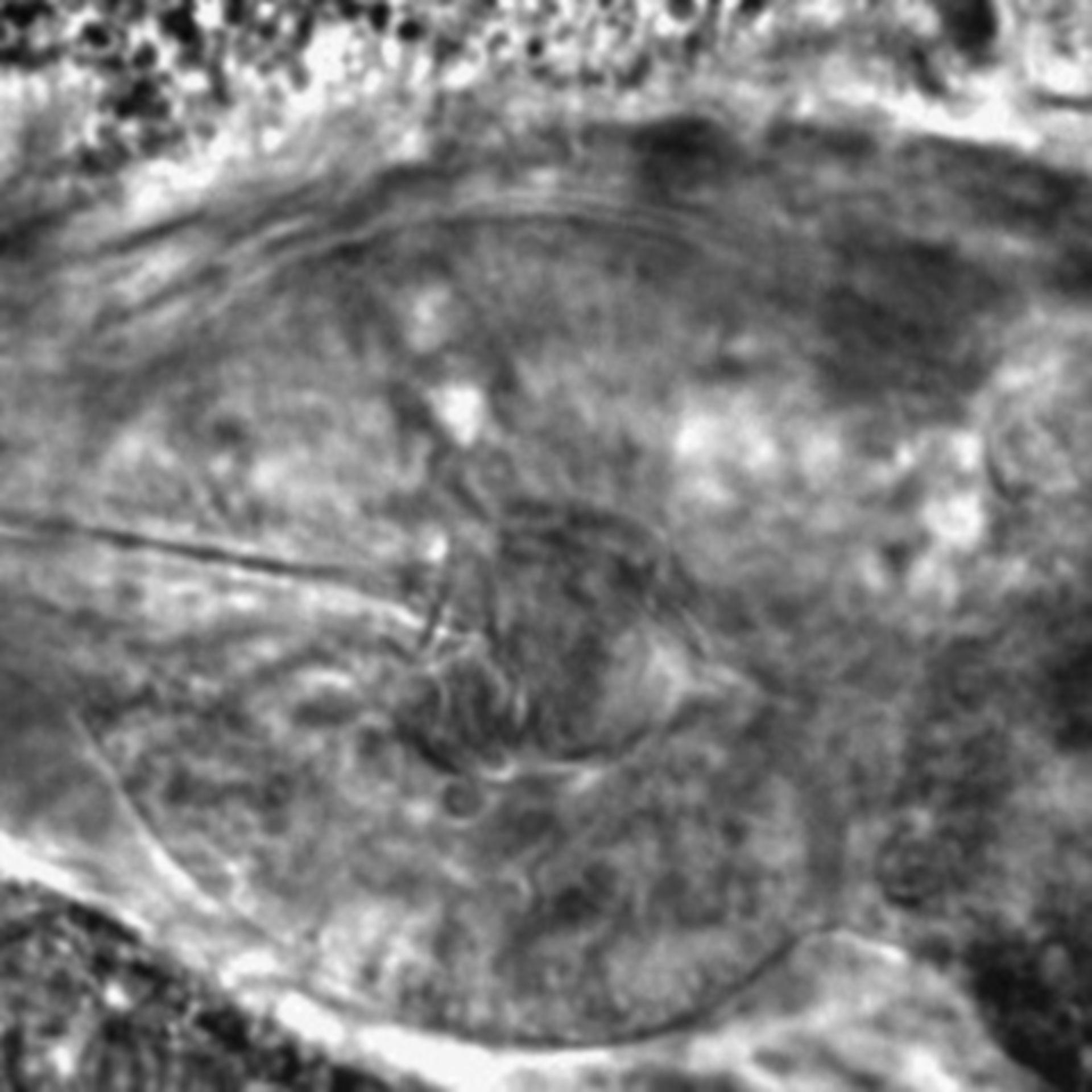 Caenorhabditis elegans - CIL:2288