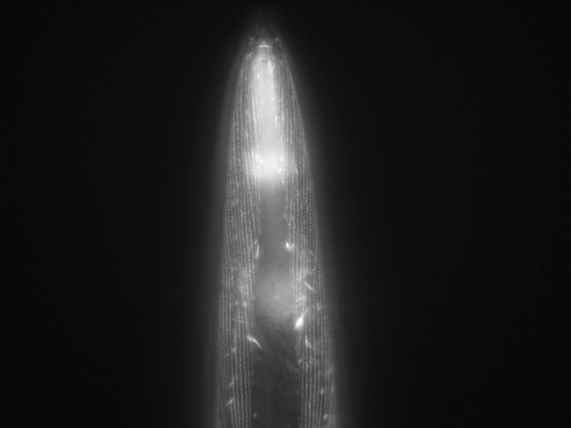 Caenorhabditis elegans (Actin filament) - CIL:1036