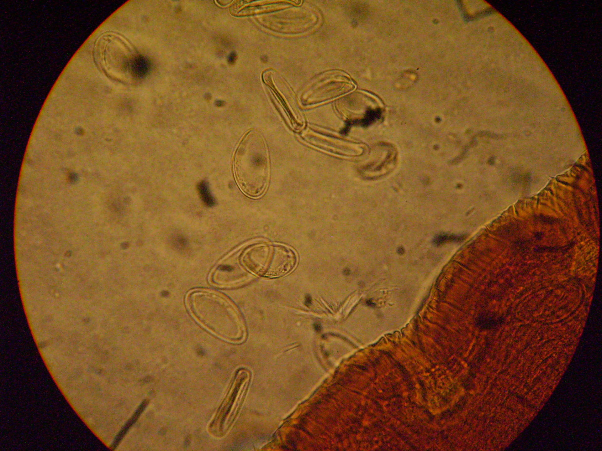 Enterobius vermicularis a.