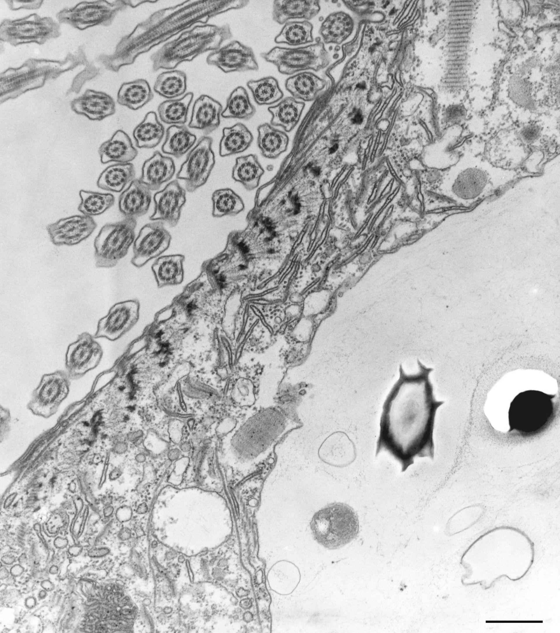 Paramecium caudatum (Endosoma) - CIL:36789